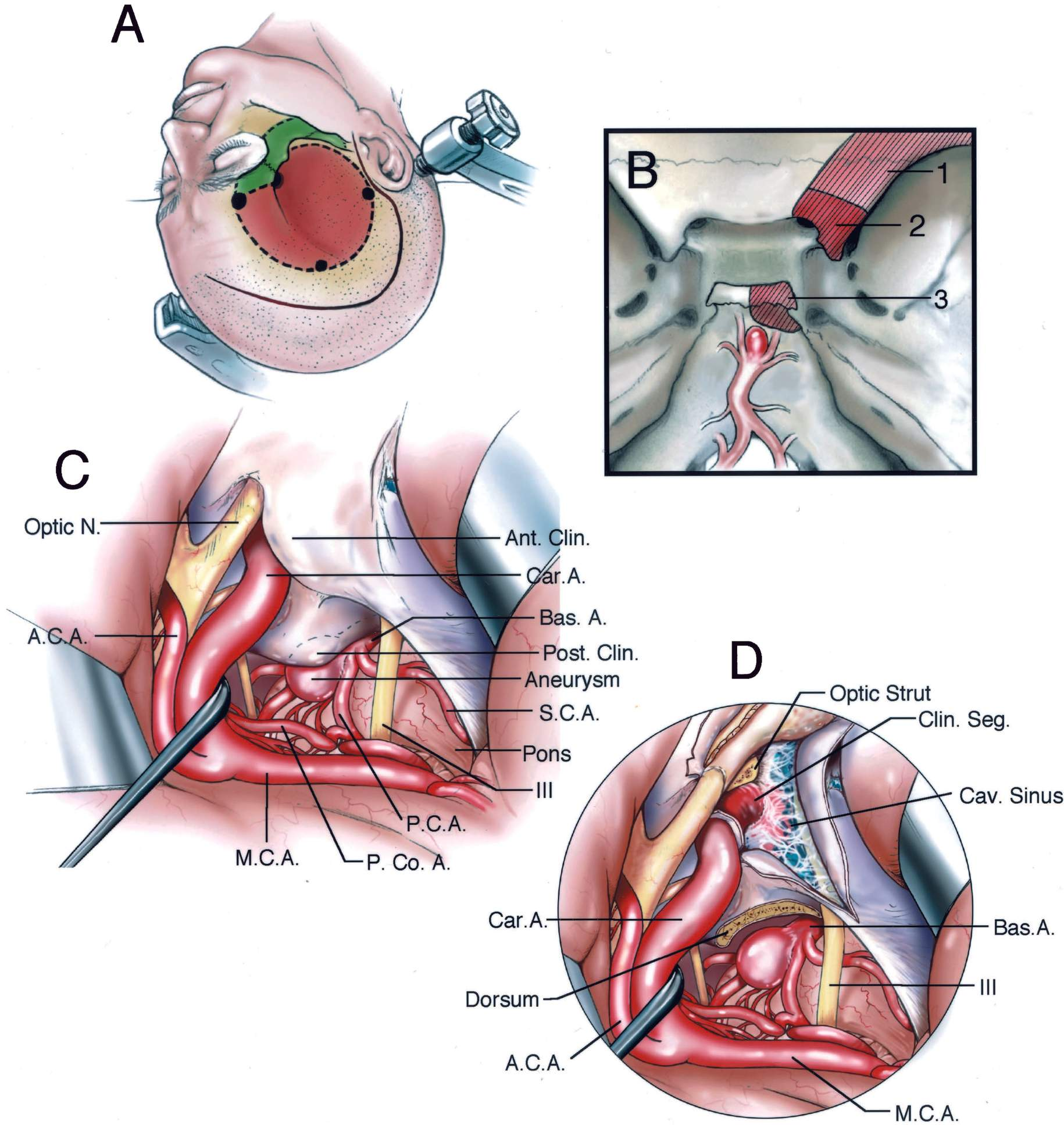 FIGURE 3.22. Orbitozygomatic transcavernous approach to a basilar apex aneurysm. A, head position and site of cranio-orbitozygomatic osteotomies. A pterional bone flap (red) is elevated as the first piece, and the orbitozygomatic osteotomy (green) is elevated as the second piece. The two-piece approach allows more of the orbital roof to be preserved than when the bone, included in the two osteotomies, is elevated as one piece. B, the bone removal (red hatched area) may include the sphenoid ridge (1), and anterior (2) and posterior clinoid processes and adjacent dorsum sellae (3). C, operative exposure of low basilar apex aneurysm. The exposure is directed between the carotid artery and oculomotor nerve. The posterior communicating artery has been elevated. The neck of the aneurysm is located behind the dorsum sellae and posterior clinoid process. D, the anterior clinoid process has been removed to expose the clinoid segment of the internal carotid artery and the roof of the cavernous sinus. The dura of the roof has been opened back to the level of the posterior clinoid process, and the posterior clinoid and adjacent part of the dorsum have been removed to expose the basilar artery below the neck of the aneurysm. A., artery; A.C.A., anterior cerebral artery; Ant., anterior; Bas., basilar; Car., carotid; Cav., cavernous; Clin., clinoid; M.C.A., middle cerebral artery; N., nerve; P.C.A., posterior cerebral artery; P.Co.A., posterior communicating artery; Post., posterior; S.C.A., superior cerebellar artery; Seg., segment.