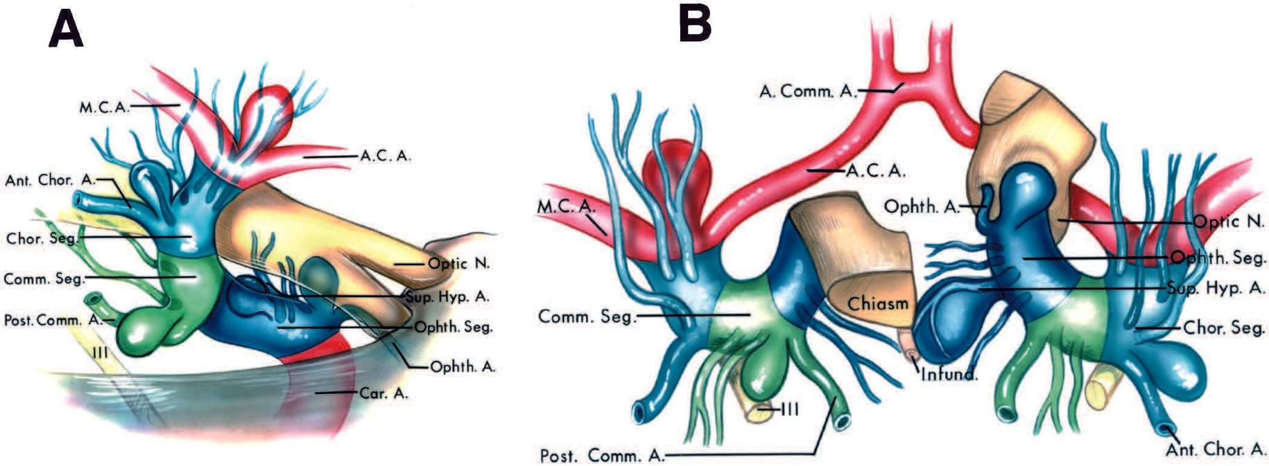 FIGURE 3.5. Perforating arteries at the common aneurysm sites on the supraclinoid portion of the internal carotid artery. A, lateral view. B, superior view, with the right optic nerve and right half of the optic chiasm reflected forward to expose the origin of the ophthalmic artery. A and B, ophthalmic aneurysms arise at the origin of the ophthalmic artery from the ophthalmic segment and point upward into the optic nerve. The perforating branches arising from the ophthalmic segment are on the medial side of this aneurysm. Posterior communicating aneurysms arise at the origin of the posterior communicating artery from the communicating segment and point posteriorly toward the oculomotor nerve. The perforating branches arising from the communicating segment are often stretched around the neck of posterior communicating aneurysms. Anterior choroidal aneurysms arise at the origin of the anterior choroidal artery from the choroidal segment and point posterolaterally. They are usually located superior or superolateral to the origin of the anterior choroidal artery. Aneurysms arising at the bifurcation into the anterior and middle cerebral arteries point upward lateral to the optic chiasm and tract toward the anterior perforated substance. The perforating branches arising from the choroidal segment are usually stretched along the posterior wall of the aneurysm arising at the bifurcation. A., artery; Ant., anterior; Comm., communicating; A.C.A., anterior cerebral artery; Chor., choroidal; Car., carotid; Hyp., hypophyseal; Infund., infundibulum; M.C.A., middle cerebral arteries; N., nerve; Ophth., ophthalmic; Post., posterior; Seg., segment; Sup., superior.