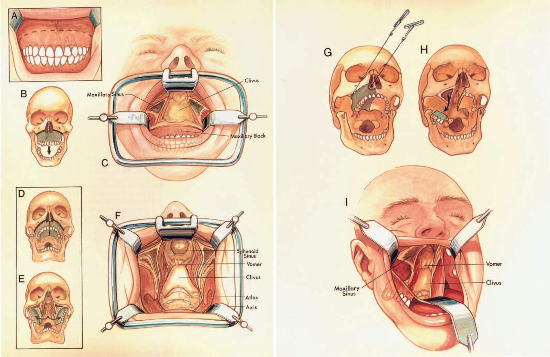 FIGURE 6.16. Transmaxillary approaches. Three variants of the transmaxillary approaches are shown. All three can be completed through an intraoral incision with degloving. Another type of incision extending onto the face, such as a Weber-Fergusson incision, might be considered. A, the upper lip is elevated and the mucosa is incised along the upper alveolar margin around the molars. The mucosa is elevated from the anterior face of the maxilla below the infraorbital foramen, but high enough to avoid the dental roots. The mucosa is elevated from the nasal surface of the maxilla, and the nasal septum is divided above its attachment to the palate. B, the saw cuts (solid line) extend into the maxillary sinus on both sides. The free block of maxilla is moved downward (arrow) to give access to the clivus. C, the intraoral retractor has been placed. Displacing the maxilla downward gives wide access to the clivus. D, a modified technique, called the extended maxillectomy, includes the LeForte I osteotomy with a midline incision of the hard and soft palate (solid lines). E, this allows the halves of the maxilla, which are attached to the muscles and vessels in the infratemporal fossa, to be reflected laterally, providing wider exposure to the clivus and upper cervical spine. F, retractors have been placed to expose the clivus and upper cervical area. The approach can be extended upward into the sphenoid and ethmoid sinuses and downward to C2 or C3. G–I. Unilateral maxillotomy. G, in this approach, half of the maxilla is mobilized by a bone cut, which extends back to the infratemporal fossa in the area just below the infraorbital foramen, and the maxilla is divided in the midline. A mucosal incision is made along the low surface of the hard palate parallel to the midline on the side opposite the saw cut through the hard palate, and the anterior face of the maxilla is degloved on one side. The soft palate is left intact. H, the unilateral block of maxilla, which is still attached to the structures in the infratemporal fossa along the pterygoid plates and to the soft palate, which is not interrupted, is folded downward into the floor of the mouth. I, the anterior part of the nasal septum is left undisturbed, but the posterior part is removed along with some of the turbinates and wall of the sinuses to provide a wide exposure of the clivus. This exposure can be enlarged to include the walls of the sphenoid and ethmoid sinuses. (From, Rhoton AL Jr: Anatomical basis of surgical approaches to the region of the foramen magnum, in Dickman CA, Spetzler RF, Sonntag VKH (eds): Surgery of the Craniovertebral Junction. New York, Thieme Medical Publishers, Inc., 1998, pp 13–57 [24].)