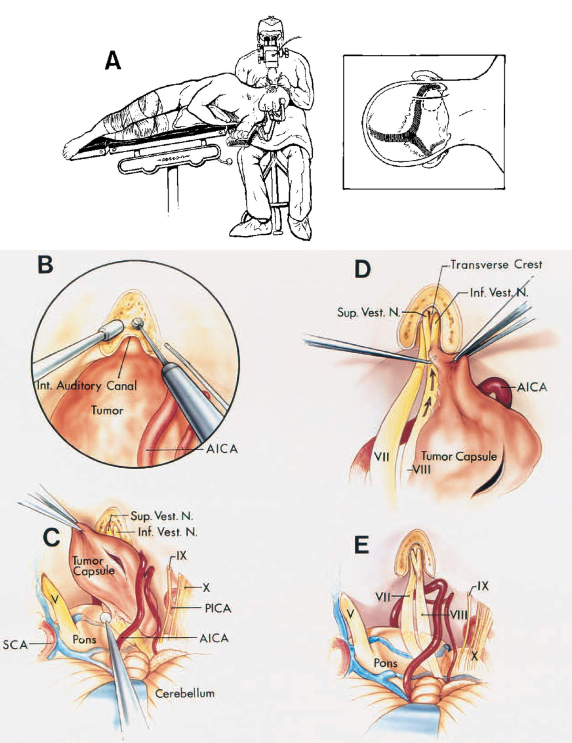 FIGURE 4.25. A. Retrosigmoid approach for removal of small or medium-size acoustic neuromas. A, the patient is positioned in the three-quarter prone position with the surgeon behind the head. The insert (right) shows the site of the scalp incision (continuous line) and the bony opening (interrupted line).B–E. Retrosigmoid approach for the removal of small or medium-size acoustic neuromas. B, the posterior wall of the internal auditory canal is removed using an irrigating drill. The AICA courses around the lower margin of the tumor. C, the intracapsular contents of the tumor have been removed. The capsule of the tumor is being separated from the pons and the posterior surface of the part of thefacial and vestibulocochlear nerves adjacent to the brainstem. The superior and inferior vestibular nerves are seen at the lateral end of the internal auditory canal. The trigeminal nerve and SCA are above the tumor and the glossopharyngeal and vagus nerves and the PICA are below the tumor. D, the dissection along the eighth nerve is done in a medial to lateral direction (arrows) to avoid tearing the tiny filaments of the cochlear nerve in the lateral end of the canal where they pass through the lamina cribrosa. The transverse crest separates the superior and inferior vestibular nerves in the lateral end of the canal. E, cerebellopontine angle and internal auditory canal after tumor removal. The facial and vestibulocochlear nerves have been preserved. A.I.C.A., anteroinferior cerebellar artery; Inf., inferior; Int., internal; N., nerve; P.I.C.A., posteroinferior cerebellar artery; S.C.A., superior cerebellar artery; Sup., superior; Vest., vestibular. (From, Rhoton AL Jr: Microsurgical anatomy of acoustic neuromas, in Sekhar LN, Janecka IP (eds): Surgery of Cranial Base Tumors. New York, Raven Press, 1993, pp 687–713 [37].)