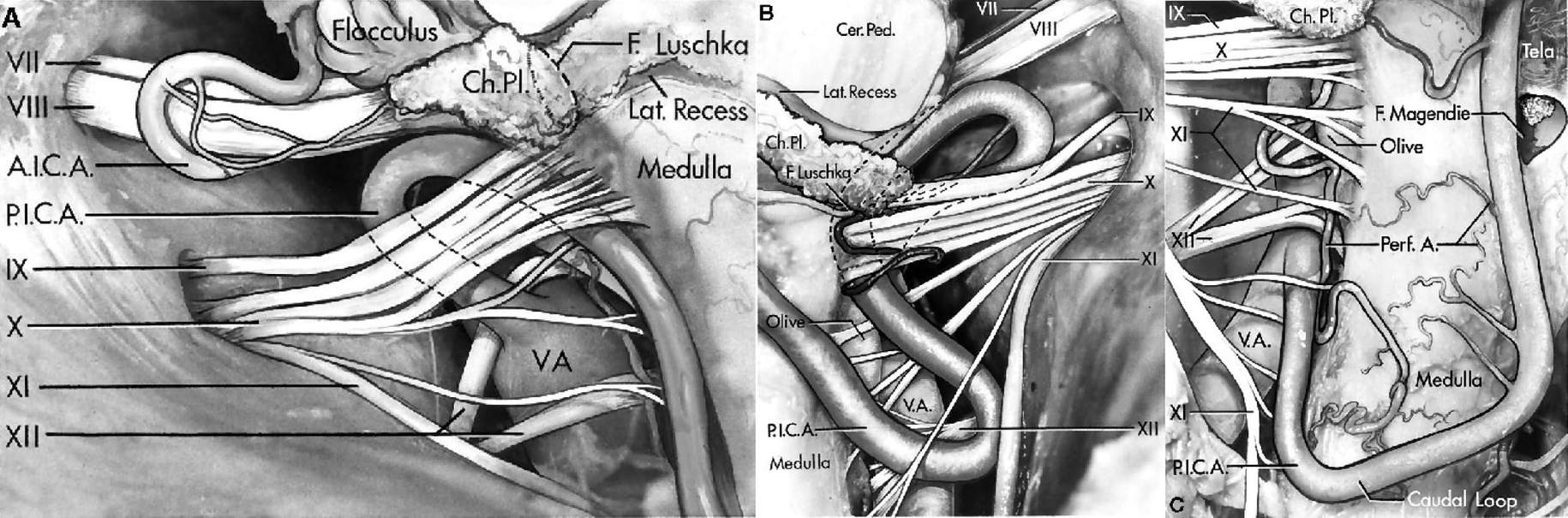 FIGURE 4.27. A, the PICA arises from thevertebral artery, passes between the rootlets of thehypoglossal nerve, and loops superiorly under theglossopharyngeal and vagus nerves before passing posteroinferiorly between the rootlets of the vagus and spinal accessory nerves. The vertebral artery stretches the rootlets of the hypoglossal nerve posteriorly. The AICA loops posterior to the facial and vestibulocochlear nerves. B, a tortuous PICA arises from the vertebral artery and passes rostrally toward the vestibulocochlear and facial nerves. At the level of the vestibulocochlear nerve, it loops inferiorly and descends anterior to the glossopharyngeal and vagus nerves, and passes between the vagus and spinal accessory nerves. The PICA compresses the medulla anterior to the origin of the glossopharyngeal and vagus nerves. The choroid plexus protrudes from the foramen of Luschka posterior to the glossopharyngeal nerve. The cerebellar peduncles are above the lateral recess of the fourth ventricle. C, the vertebral artery displaces and stretches the hypoglossal rootlets so far posteriorly that they intermingle with the rootlets of the spinal accessory nerve. The PICA descends between the rootlets of the spinal accessory nerve. (From, Lister JR, Rhoton AL Jr, Matsushima T, Peace DA: Microsurgical anatomy of the posterior inferior cerebellar artery. Neurosurgery 10: 170–199, 1982 [24].) A., artery; A.I.C.A., anteroinferior cerebellar artery; Cer., cerebellar; Ch. Pl., choroid plexus; F., foramen; Lat., lateral; Ped., peduncle; Perf., perforating; P.I.C.A., posteroinferior cerebellar artery; V.A., vertebral artery.