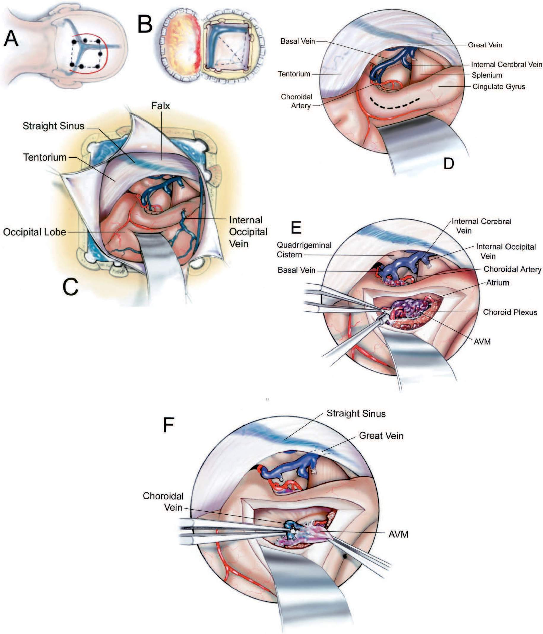 FIGURE 5.29. Occipital-transcingulate approach to an arteriovenous malformation of the right atrium. The down side is the one harboring the lesion. A, right occipital scalp (solid line) and bone flaps (broken line) are elevated. The bone flap extends up to or across the margin of the transverse and sagittal sinuses. B, the dura is opened with pedicles on the transverse and sagittal sinuses. C, the right occipital lobe is retracted and allowed to settle downward away from the falx to expose the isthmus of the cingulate gyrus. An internal occipital vein is often sacrificed to reach this area. D, enlarged view. The broken line shows the site of the cortical incision through the isthmus of the cingulate gyrus. The internal cerebral, basal, and great veins are exposed in the quadrigeminal cistern. E, the malformation is situated in the choroid plexus. The arteries entering and the veins exiting the malformation pass through the choroidal fissure to reach the quadrigeminal cistern. F, the choroidal arteries that feed the malformation have been coagulated and divided and the last draining vein from the malformation is being obliterated with bipolar coagulation.