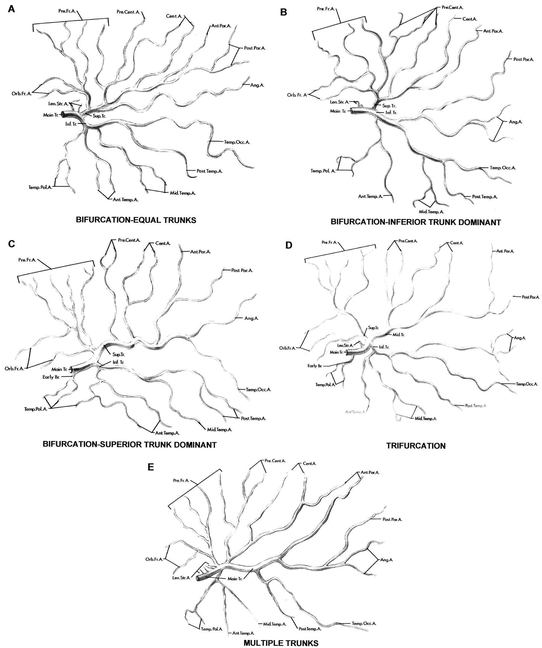 FIGURE 2.19. Branching patterns of the middle cerebral artery. These drawings of MCAs dissected from five cerebral hemispheres show the different branching patterns of the main trunk. The main trunk divides in a bifurcation in 78% of hemispheres, in a trifurcation in 12%, and in a multiple branch pattern (four or more trunks) in 10%. The drawings show the main, superior, middle, and inferior trunks. These trunks give rise to the lenticulostriate, orbitofrontal, prefrontal, precentral, central, anterior parietal, posterior parietal, angular, temporo-occipital, posterior temporal, middle temporal, anterior temporal, and temporopolar arteries. A, bifurcation: equal trunks (18% of hemispheres). The main trunk divides into superior and inferior trunks that are of approximately the same diameter and supply cortical areas of similar size. The superior trunk gives rise to the orbitofrontal arteries through the angular arteries, and the inferior trunk gives rise to the temporopolar through the temporo-occipital arteries. B, bifurcation: inferior trunk dominant (32% of hemispheres). The inferior trunk has a larger diameter and area of supply than the superior trunk. The superior trunk supplies the orbitofrontal through the anterior parietal areas, and the inferior trunk supplies the posterior parietal through the temporopolar areas. C, bifurcation: superior trunk dominant (28% of hemispheres). The superior trunk has a larger diameter and area of supply than the inferior trunk. It supplies the orbitofrontal through the temporo-occipital areas, and the inferior trunk supplies the temporal areas except for the temporopolar area, which is supplied by an early branch (Early Br.) that arises from the main trunk. D, trifurcation pattern (12% of hemispheres). The main trunk of the MCA divides into three trunks. The superior trunk supplies the orbitofrontal and prefrontal areas, the middle trunk supplies the precentral through the posterior parietal areas, and the inferior trunk suppl