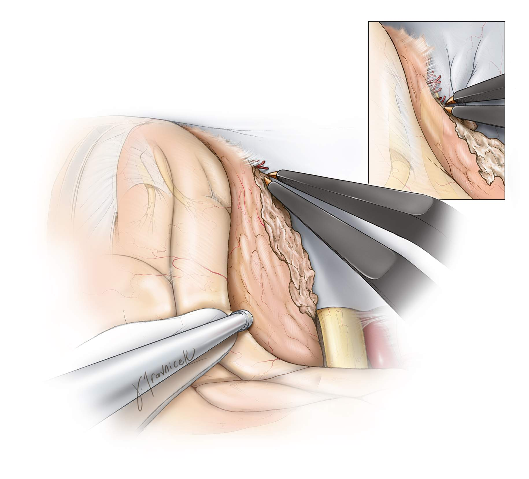 Figure 10: Next, the base of the tumor is thoroughly devascularized as far as possible to expose the contralateral orbital roof.  This maneuver is facilitated by gentle mobilization and rotation of the tumor superiorly and laterally, usually feasible because of the previous measures employed to decrease cerebral tension.     This step is critical for advancing the efficiency of tumor resection and minimizing blood loss, especially in the case of a large vascular tumor. The tumor is shaped like a mushroom and the dural attachment at its base is smaller than its dome. Heat injury to the optic nerves and carotid artery is avoided.     The ethmoidal artery feeders (inset image) along the mid anterior skull base can lead to torrential bleeding because of the avulsion of these vessels during tumor mobilization. I pack Gelfoam powder spheres soaked in thrombin into the bleeding sites within the bone after the skull base has been cleared from the tumor; some pressure and patience often achieves hemostasis. I have even used Bovie cautery to stop bleeding there as these vessels retract into the skull base and their control can be difficult.