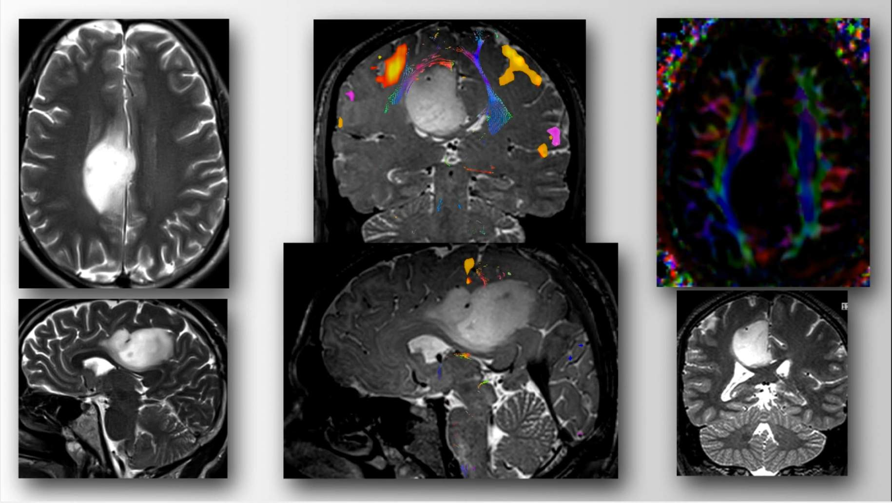 Figure 7: Preoperative images demonstrate a low-grade glial tumor located in the right periatrial region extending to the medial frontal lobe. Middle panel, upper image (coronal) and lower image (sagittal) functional MR images demonstrate the location of the sensorimotor cortex draped over the upper pole of the tumor. Diffusion tensor imaging (right upper image) reveals displacement of motor fibers by the tumor.