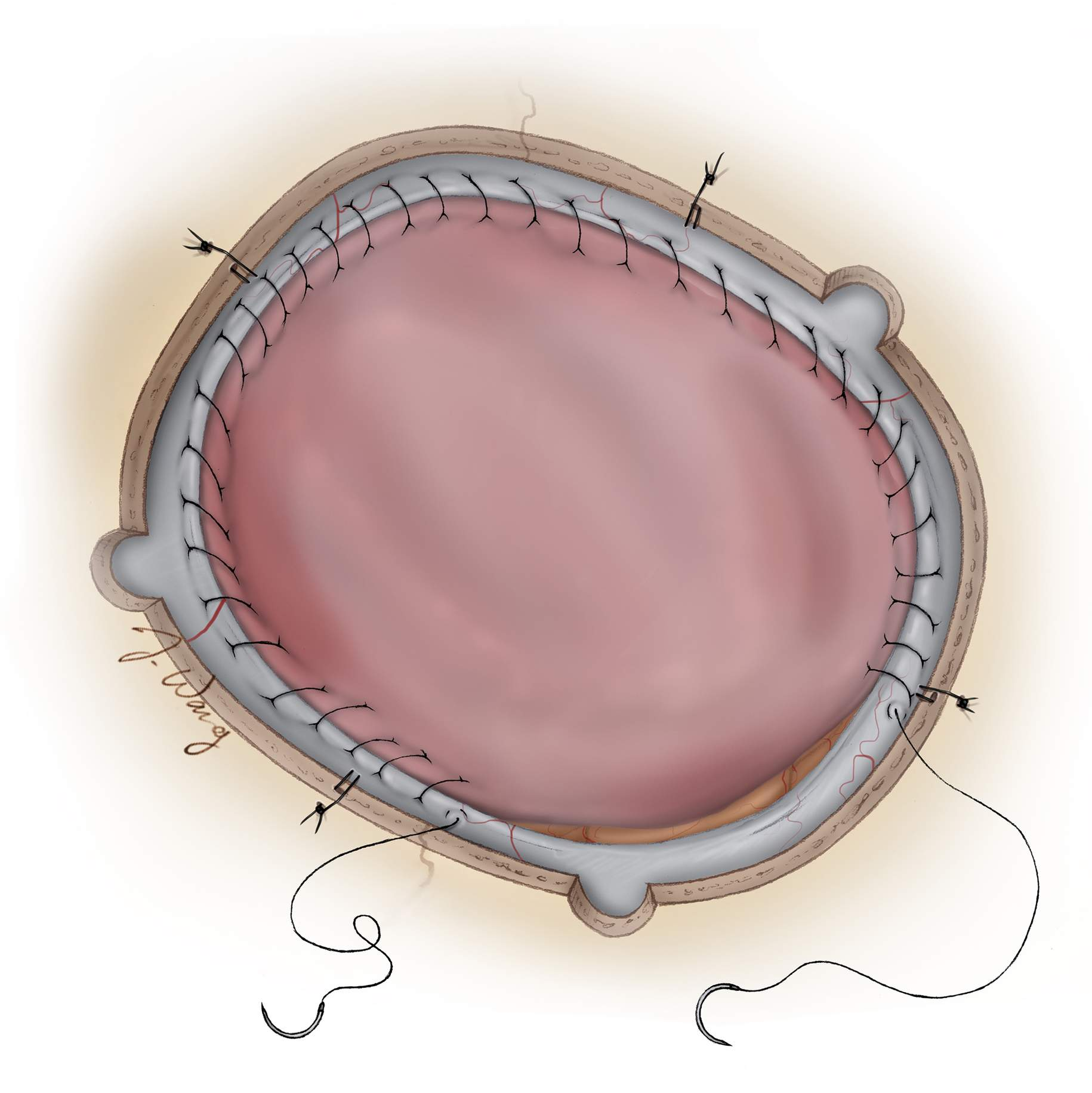 Figure 12: The dural defect is repaired using the previously prepared pericranial autograft. Epidural tack-up sutures should be used to constrain the epidural space and decrease postoperative epidural collections. The bone flap is inspected for any hyperostosis that should be excised. Finally, the bone flap is replaced and any large bony defect is covered with a prefabricated custom flap or titanium mesh.