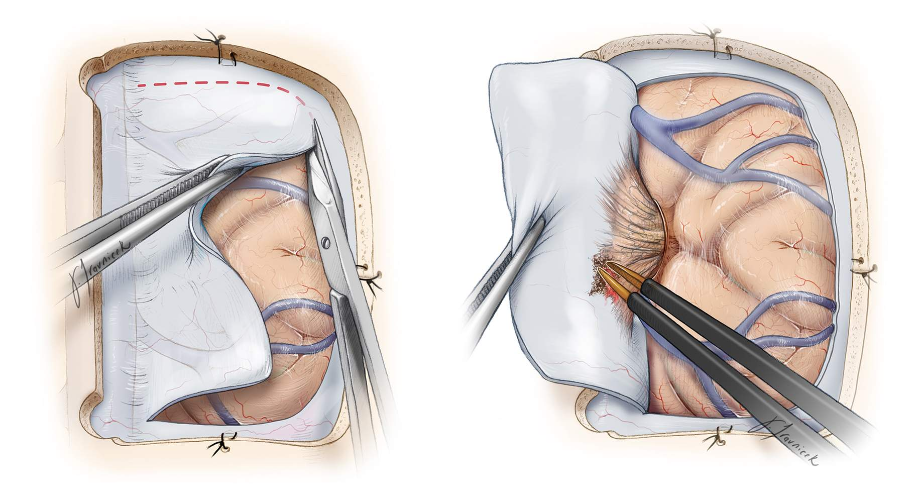 Figure 4: I open the dura in a curvilinear fashion and create a dural flap based on the venous sinus. Care is taken not to injure any large draining veins, especially in the perirolandic region. Occasionally a small draining vein may need to be sacrificed. The first incision within the dura is made away from the superior sagittal sinus (left image); this tactic allows early identification of the cortical veins and reliable tracing of their midline drainage patterns.    If a parasagittal vein is encountered draining into the sinus, the dural opening must be adjusted to protect the vein's inlet into the sinus. The dural base of the tumor is coagulated early on for tumor devascularization (right image).