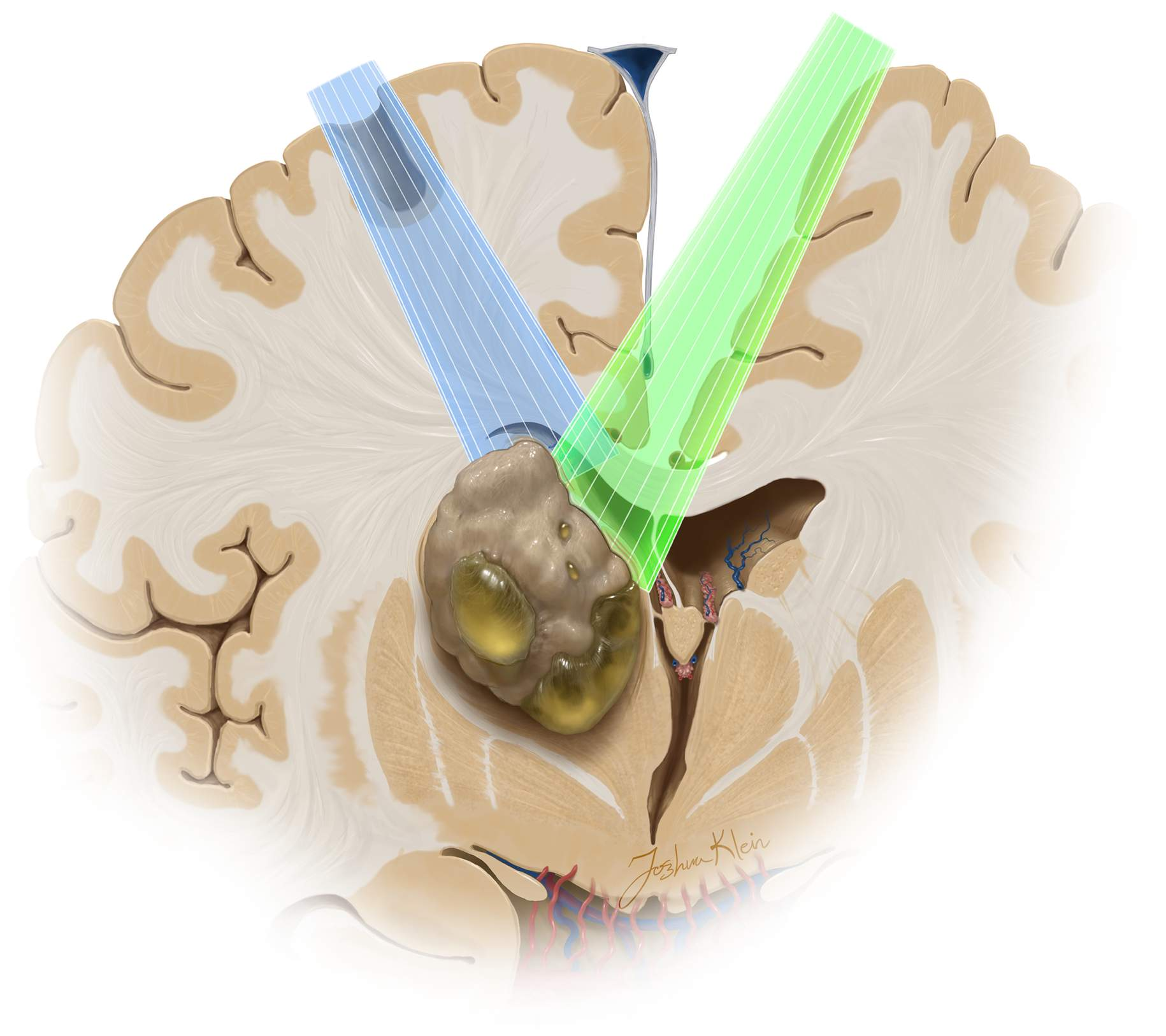 Figure 15: Use of the contralateral transcallosal route is favorable for superior and lateral thalamic tumors. The expanded advantages of the cross-court trajectory (green) over the ipsilateral corridor (blue) are apparent.
