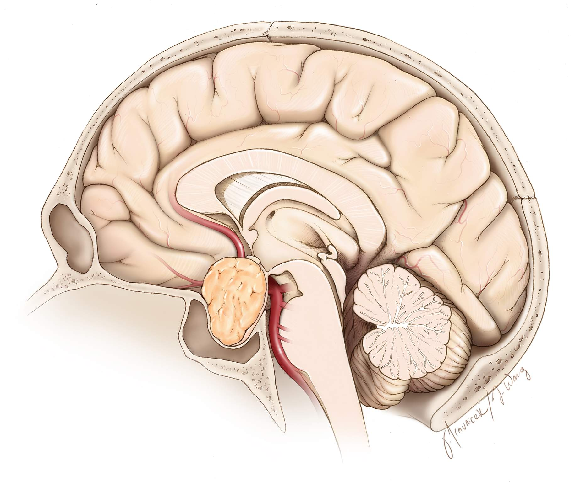 Figure 3: The configuration of a typical pituitary adenoma on a sagittal plane is shown here. Note the location of the compressed pituitary gland in the posterior or superior directions.