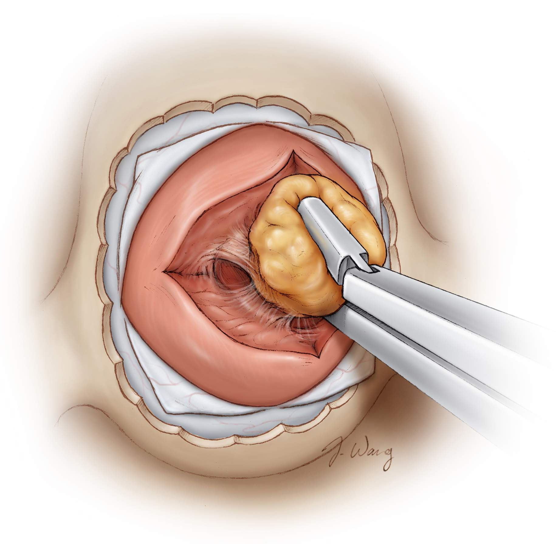 Figure 5: Following circumferential dissection of the microadenoma, the mass can then be removed. The capsule of the nodule is preserved and the nodule is removed  en bloc . The resection cavity is carefully inspected (Redrawn from Tew, van Loveren, Keller*).