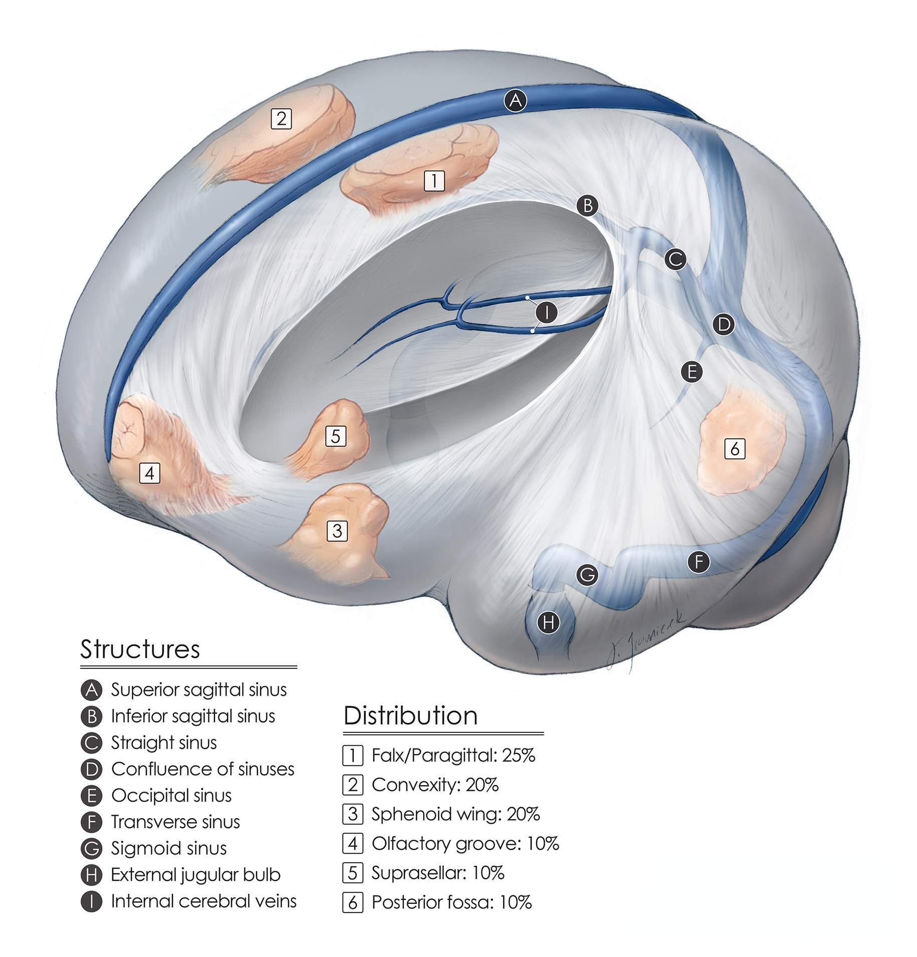 Figure 1: Meningiomas are categorized according to their usual locations.