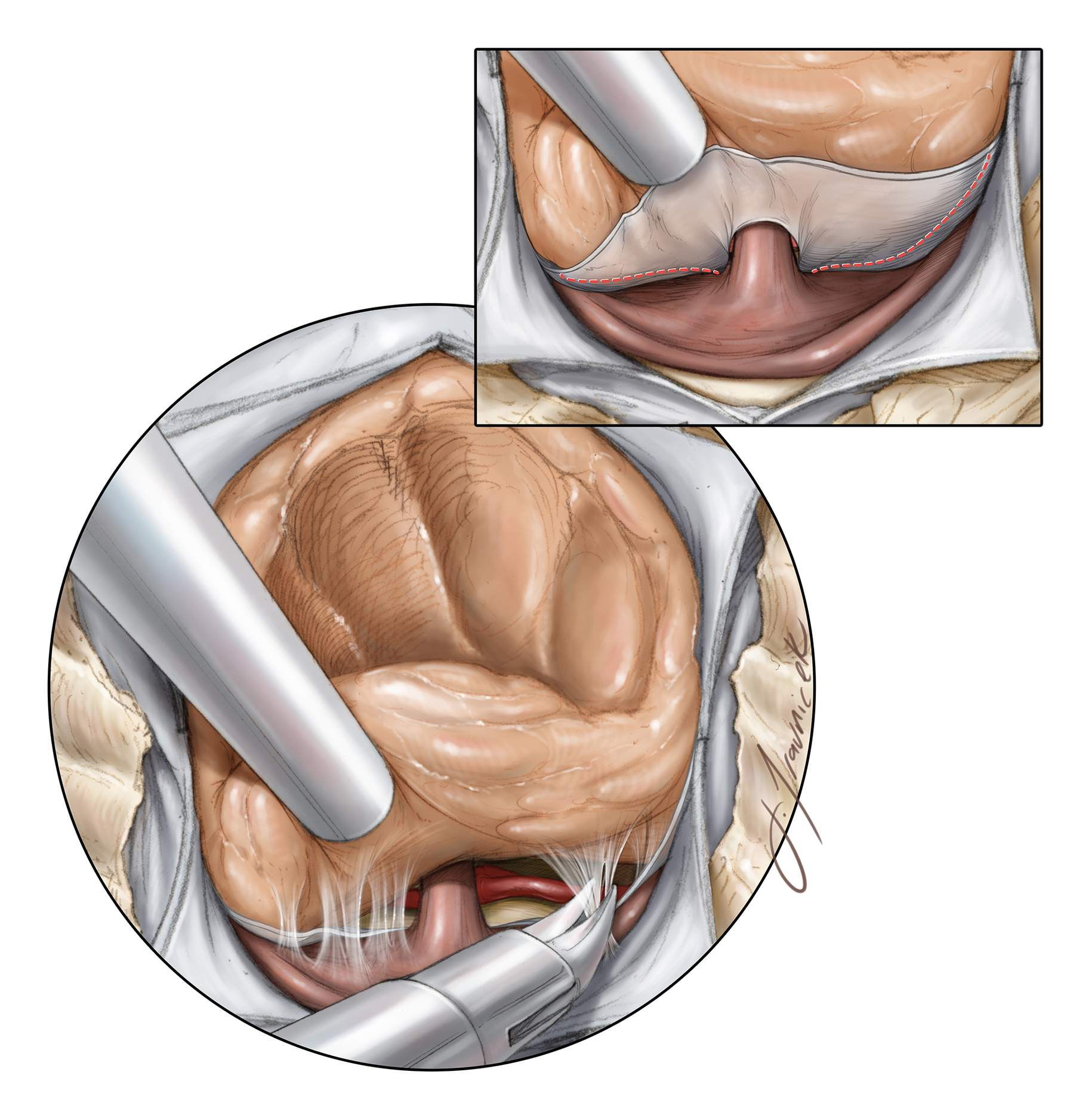 Figure 8: The inferior pole of the tumor often involves, or is based on, the dura of the diaphragm itself. The diaphragm is resected sharply where involved, avoiding injury to the pituitary stalk (inset image). Inferior tumor growth into the sellae often overlies a compressed pituitary gland that is usually posteriorly displaced. This margin is sharply dissected, often exposing the interpeduncular cisterns. The superior hypophyseal arteries will be displaced posteroinferiorly by the tumor and must not be injured.