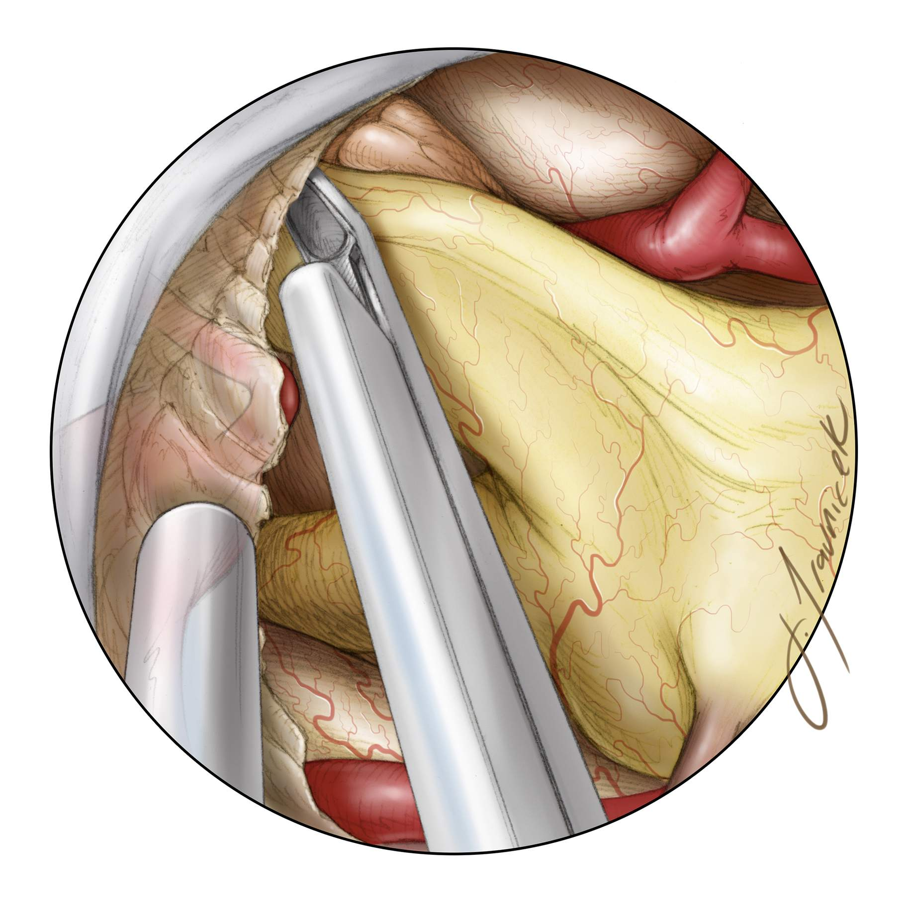 Figure 12: Next, the optic canals should be inspected using an angled scope. If radiographic canal involvement was seen preoperatively, the medial wall of the optic canal has already been removed. If unexpected intraoperative invasion is found, the floor of the canal can be opened at this point with fine rongeurs and/or a high-speed drill.