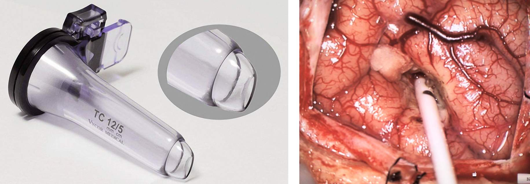 "Figure 1: The tubular retractor system is shown (left image). A small right frontal craniotomy just anterior to the coronal suture and at Kocher's point is completed using an ""L""-shaped scalp incision. The more dilated ventricle (in this case, the right ventricle) is selected for access. Frameless stereotactic navigation is used to place a standard ventricular catheter into the frontal horn of the lateral ventricle aimed at the cyst or foramen of Monro (right image)."