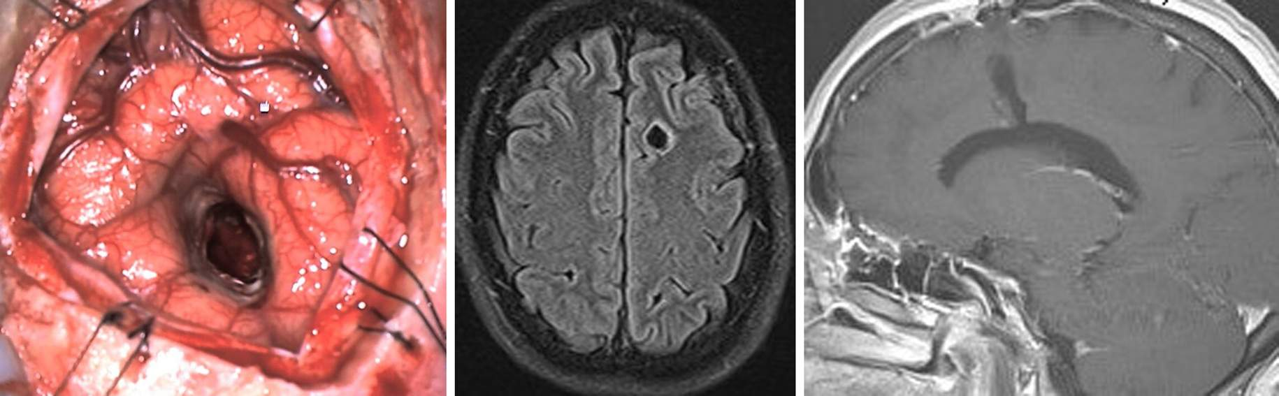 Figure 6: This photo reveals the relatively minimal amount of cortical disruption inflicted by the use of the described minitubular retractor system (left photo). The degrees of cortical and subcortical involvement by the miniretractor are demonstrated on magnetic resonance (MR) images (middle and right images).