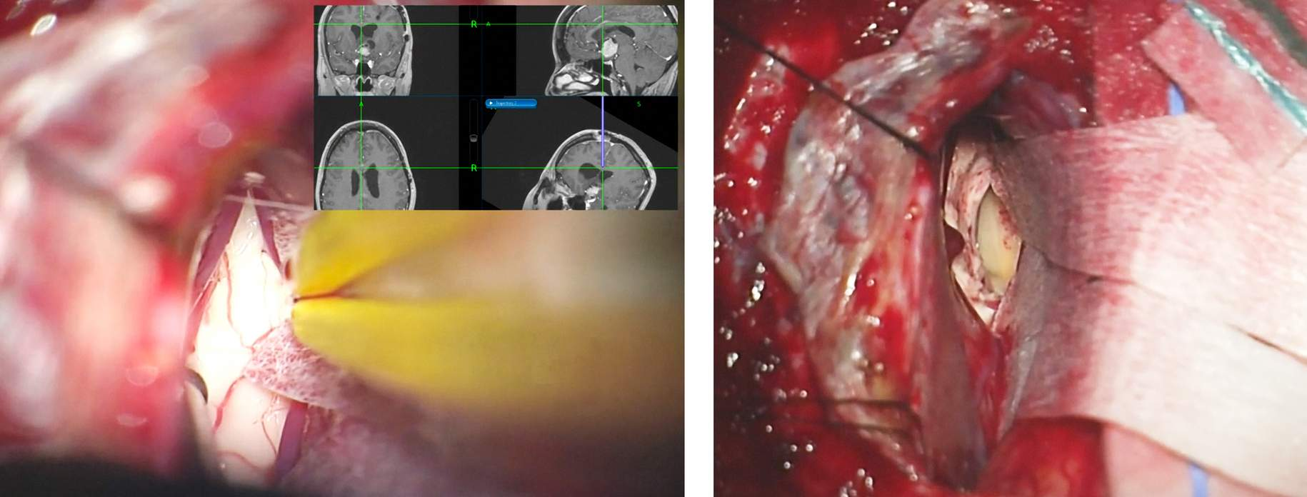 Figure 9: Neuronavigation is critical to orient the surgeon with respect to the desired trajectory to reach the foramen through a corpus callosotomy of appropriate location and minimal length (left image). A 2cm callosotomy is situated just to the right of the midline, exposing the right lateral ventricle (right image). Release of cerebrospinal fluid at this juncture further relaxes the frontal lobe. Note the sutures in the superior falx that mobilize the superior sagittal sinus.