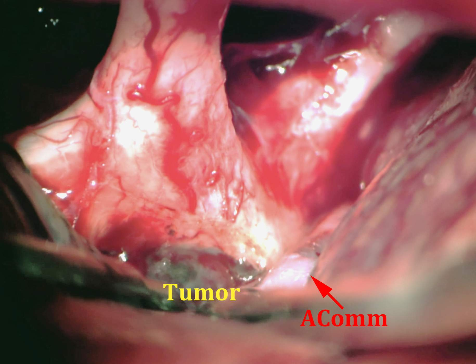 Figure 5: This is an exposure of the lamina terminalis via a left-sided orbitozygomatic craniotomy (see Figure 1 for the corresponding preoperative scans). The grayish tumor has expanded the lamina. The anterior communicating artery complex (AComm) is labeled. Undue retraction of this vascular structure should be avoided. You can appreciate the narrow operative corridor.