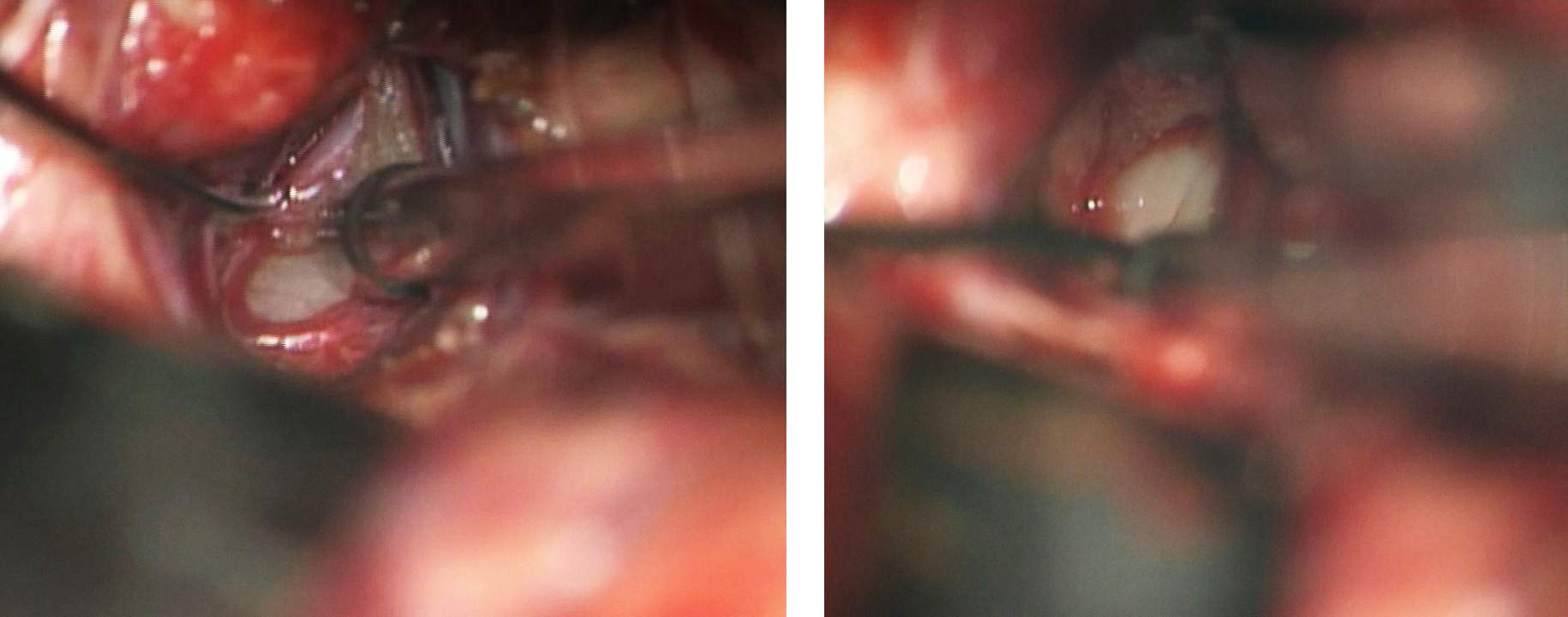 Figure 8: The tumor in Figure 2 is exposed via the midline supracerebellar approach with the patient in the sitting position. Note the discoloration of the left tectum (left image, at the tip of suction device). Removal of the affected tectum allowed entry into the ventricle and gross total resection of the mass (right photo).