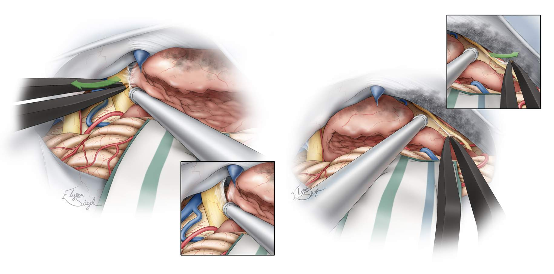 Figure 9: I use tumor forceps or the suction apparatus to mobilize the tumor capsule while fine forceps grab the arachnoid membranes to gently peel them away from the tumor while preventing direct contact with sensitive nerves (left image: left cranial nerve V; right image: left cranial nerve IV).