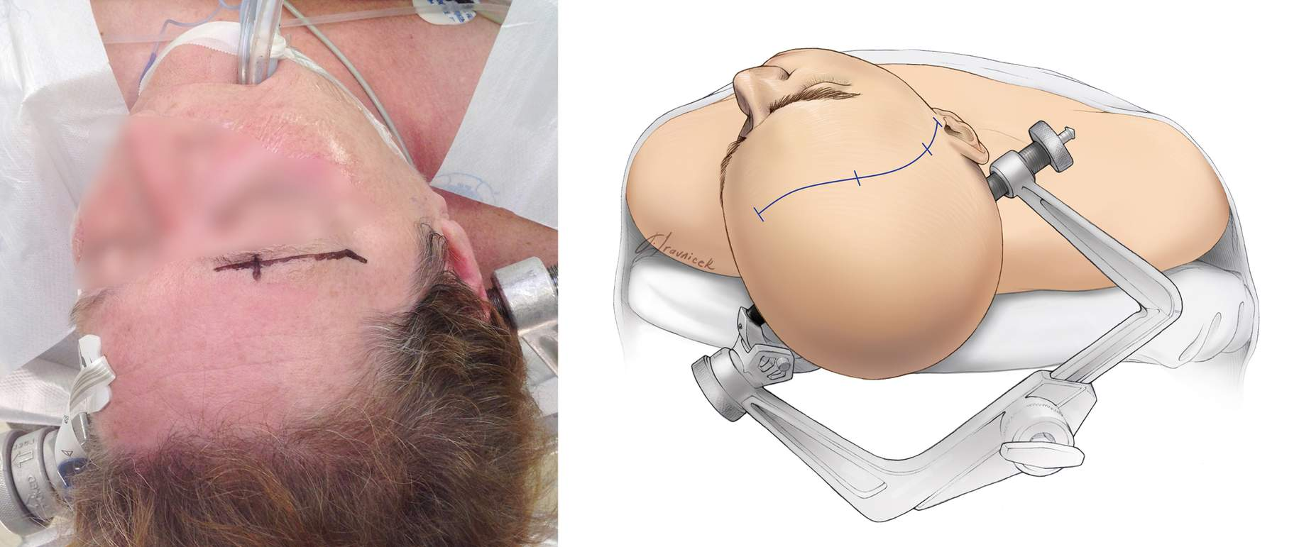 Figure 10: Head position for the anterolateral skull base approaches are demonstrated. Note the slight head rotation for the eye-brow fronto-orbital craniotomy (left).