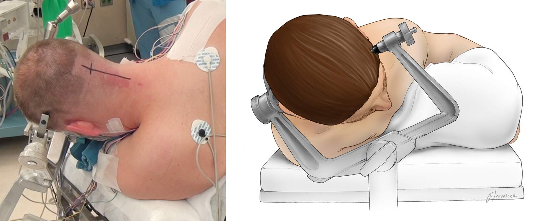 Figure 11: Patient positions during midline suboccipital (left) and retromastoid (right) operations.
