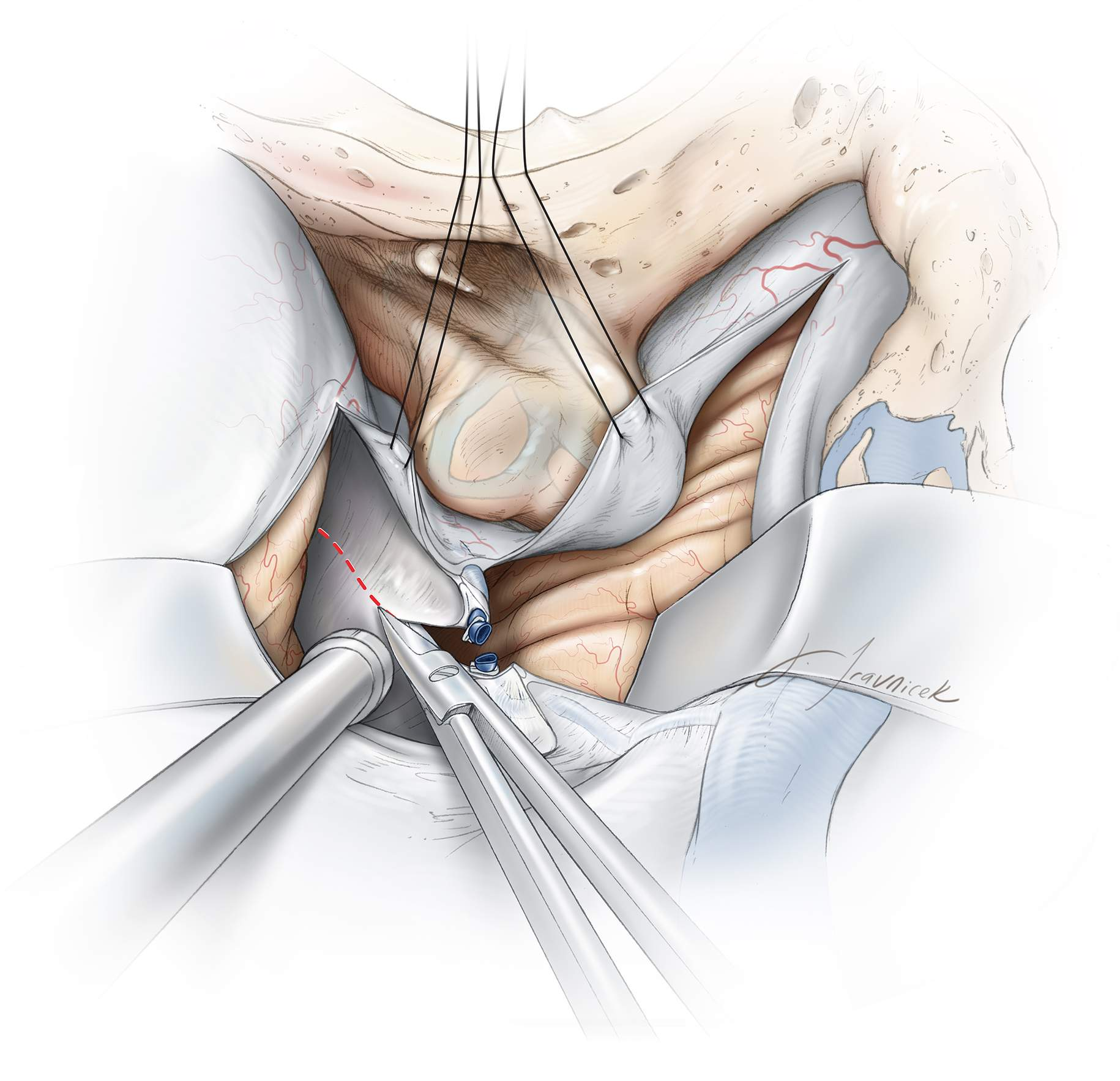Figure 9: After the superior petrosal sinus is divided, the dural incision is continued on the tentorium parallel to the edge of the petrous pyramid toward the tentorial incisura. Completing the dural incision more posteriorly will lead to a tentorial flap obstructing the surgical corridor. Note the location of the retractor blades and dural retention sutures.