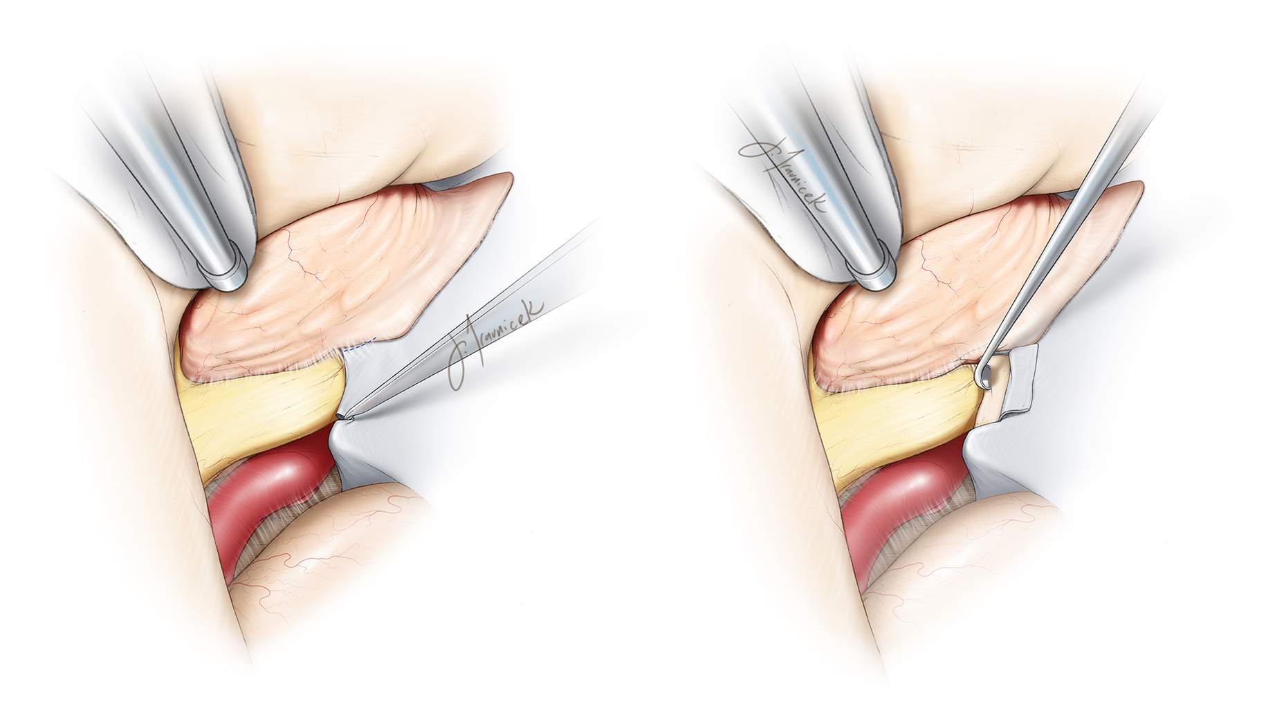 Figure 7: Since an extradural clinoidectomy was completed during the earlier stages of the operation, the falciform ligament can be readily cut (left), leading to generous decompression of the ipsilateral optic nerve. Alternatively, an  intradural clinoidectomy/osteotomy  will allow unroofing of the nerve (right). Diamond burrs and angled currettes are used through copious irrigation to prevent thermal injury to the optic nerve. Aggressive bipolar coagulation of the tumor around the nerve is avoided.