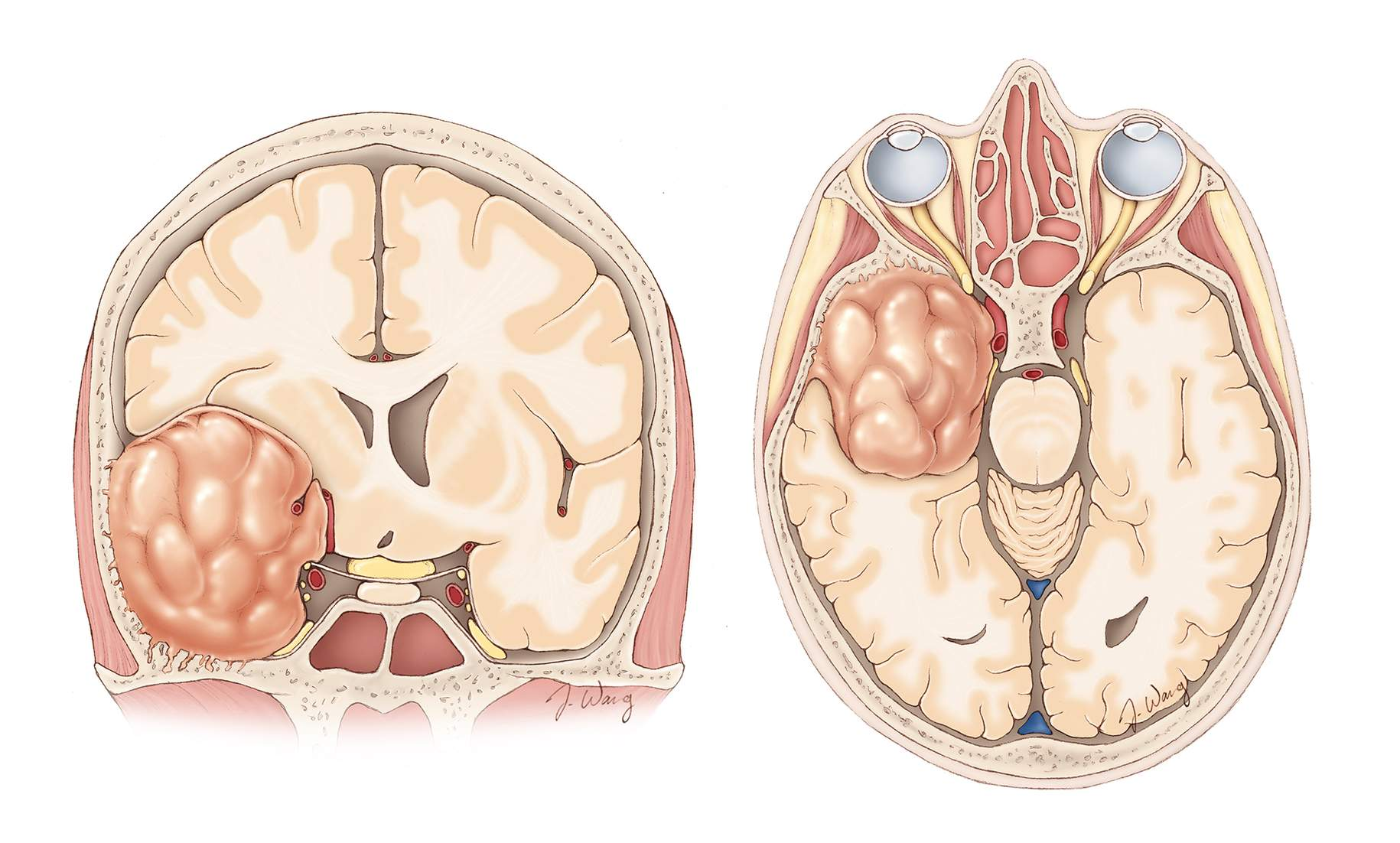 Figure 4: Coronal and axial views of a middle/medial sphenoid wing meningioma with its typical relationship to the surrounding vascular structures is demonstrated. More prominent evidence of optic apparatus compression is usually present.