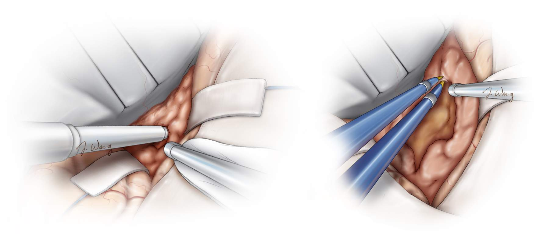 Figure 9: Enucleation and debulking of firm tumors is conducted using an ultrasonic aspirator (left image) while softer tumors are debulked using bipolar electrocautery, suction apparatus and pituitary rongeurs. Next, I gently draw upon the tumor capsule to cause its collapse into the debulked core of the tumor (right image). It is critical to stay inside the tumor capsule. Violation of the capsule places the vulnerable adherent medial cerebrovascular structures at risk. Vicinity of the ultrasonic aspirator to the vessels, even without an immediate contact, can lead to irreparable vascular injury. This device should be used away from the critical vascular structures.