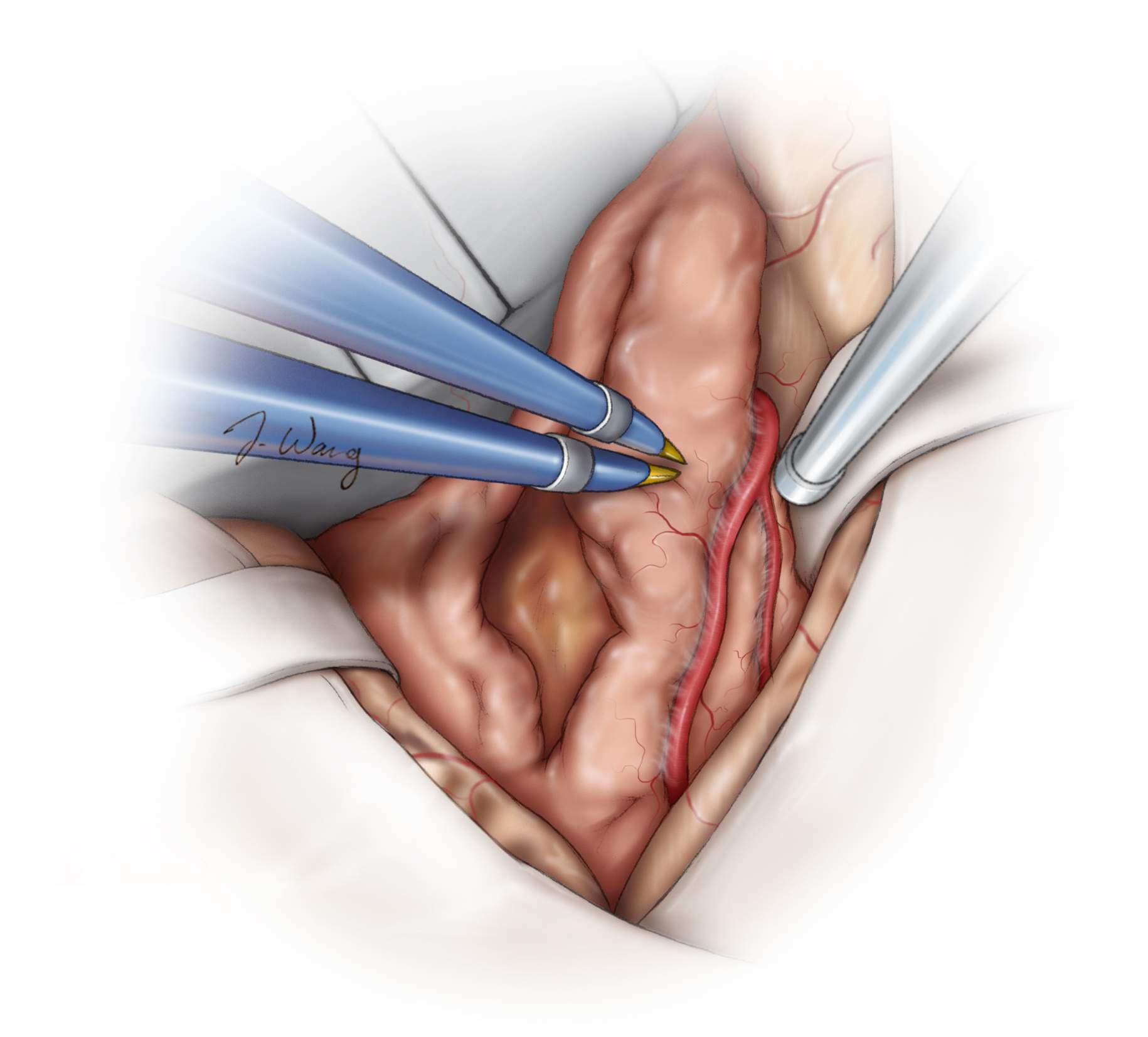 Figure 10: At this juncture, after some tumor debulking to create more working space, I further split the distal aspect of Sylvian fissure and identify the M2 branches draped over the superior and posterior poles of the tumor capsule. I also gently mobilize the tumor capsule posteriorly along the sphenoid wing in an attempt to find or estimate the location of the ICA at the skull base.  These latter two maneuvers help me approximate the route of the MCA branches, including the M1, along the medial tumor capsule-my blind spot.
