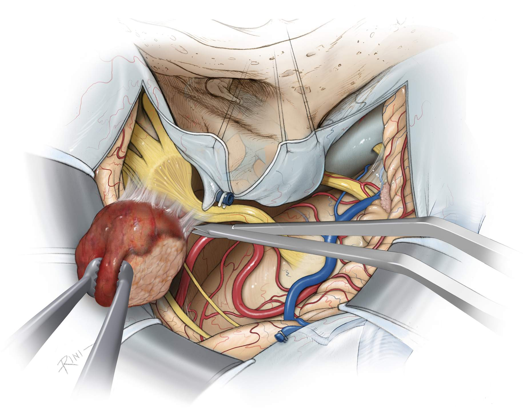 Figure 10: The last piece of the tumor is delivered out of the Meckel's cave. The perforating vessels in this area and to the diencephalon can be easily injured despite their delicate handling. Their spasm can lead to devastating consequences including thalamic infarction. I use papaverine soaked pledgets to periodically bathe the perforators during the entire dissection process.