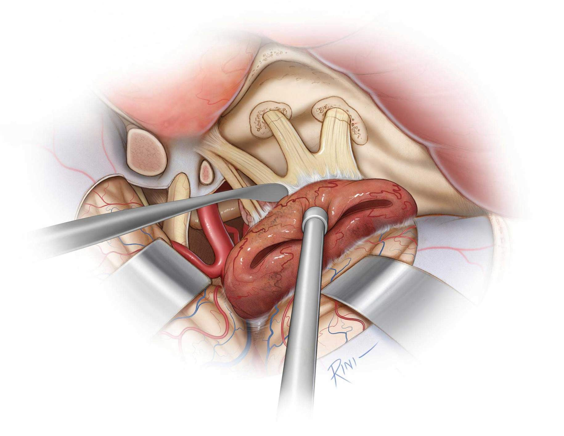 Figure 11: The tumor is carefully dissected from the Gasserian ganglion. Any portion of the tumor infiltrating the trigeminal foramina is dissected if safely possible. The bony openings around the trigeminal nerve divisions are expanded, if necessary.