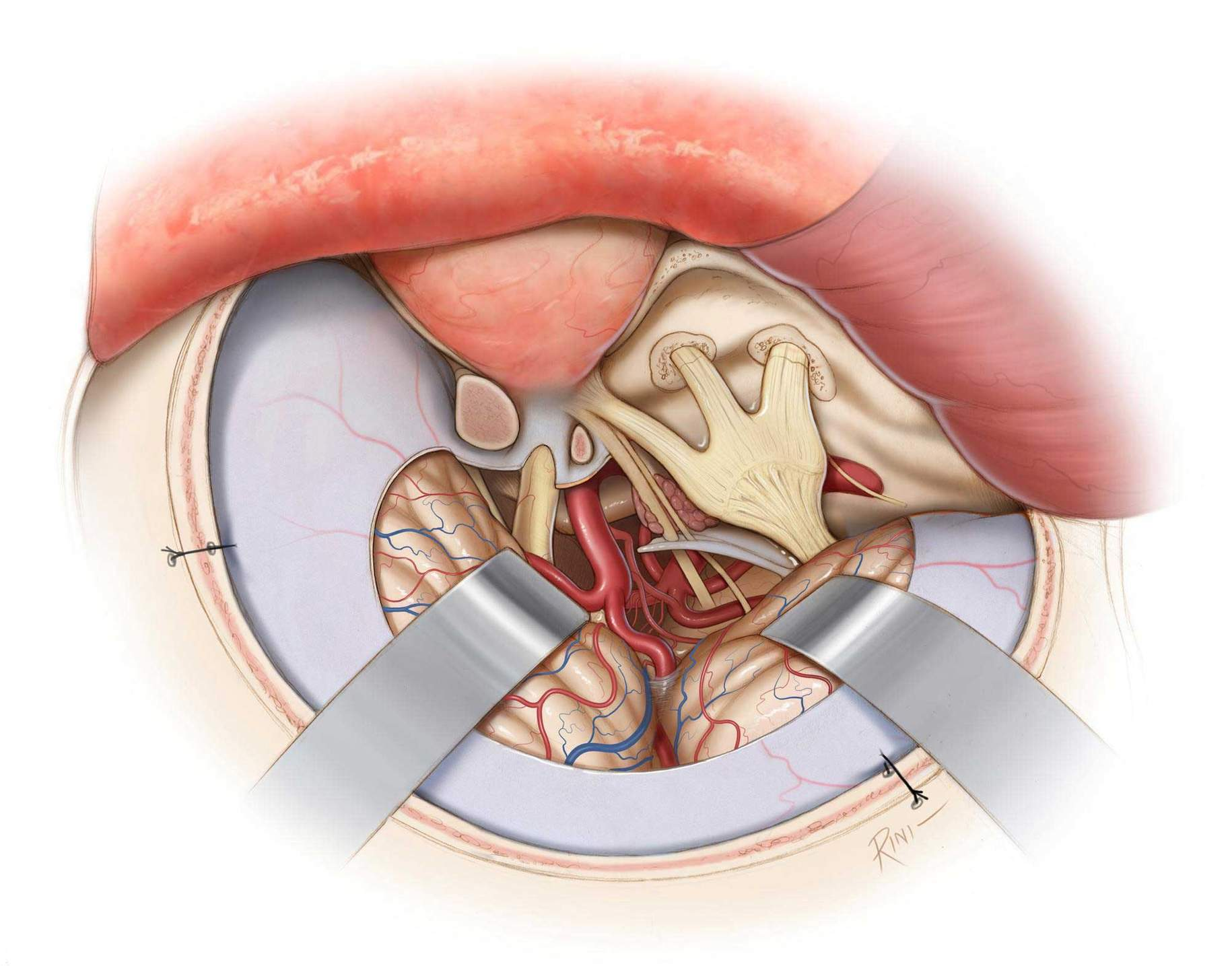 Figure 12: A final view of the operative field after tumor resection is illustrated. Small amount of tumor is left around CN IV to avoid permanent morbidity.