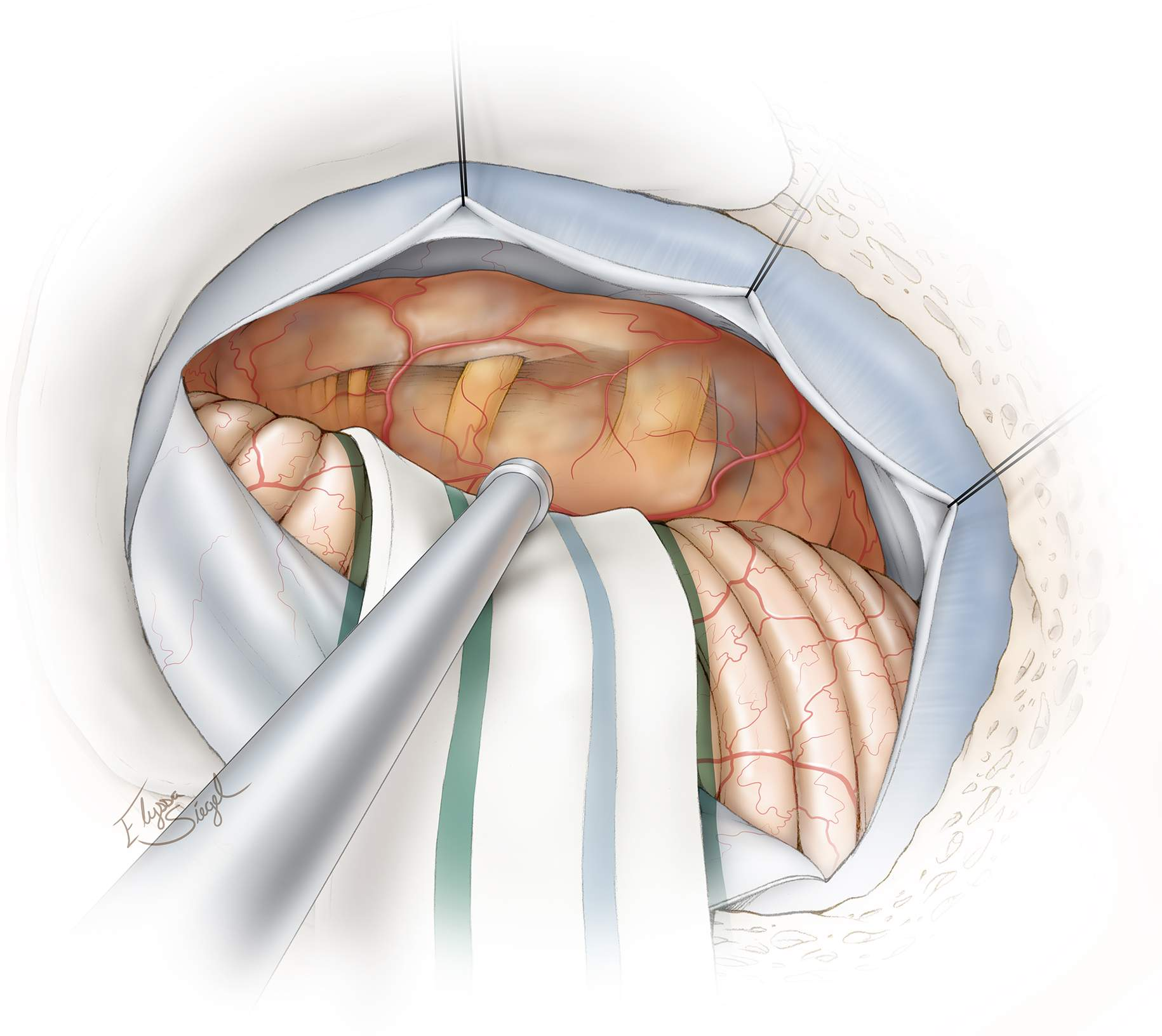Figure 5: The approximate distribution of the cranial nerves in relation to the anterior capsule of a postmeatal tumor is shown. A careful study of the preoperative MR images should provide the surgeon with a 3D understanding of the pathoanatomy of the mass and the location of vital structures.