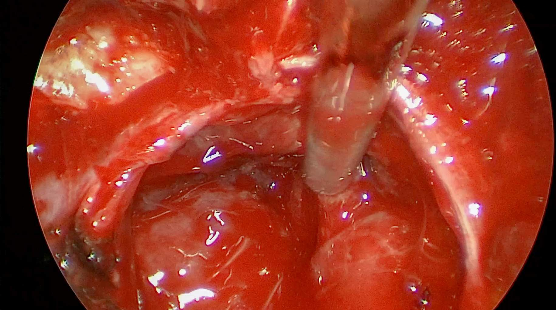 Figure 6: The patulous folds of the diaphragm are shown after portions of the giant adenoma have been resected. The cleft where the suction device is located most likely contains additional tumor fragments tracking into the suprasellar space.