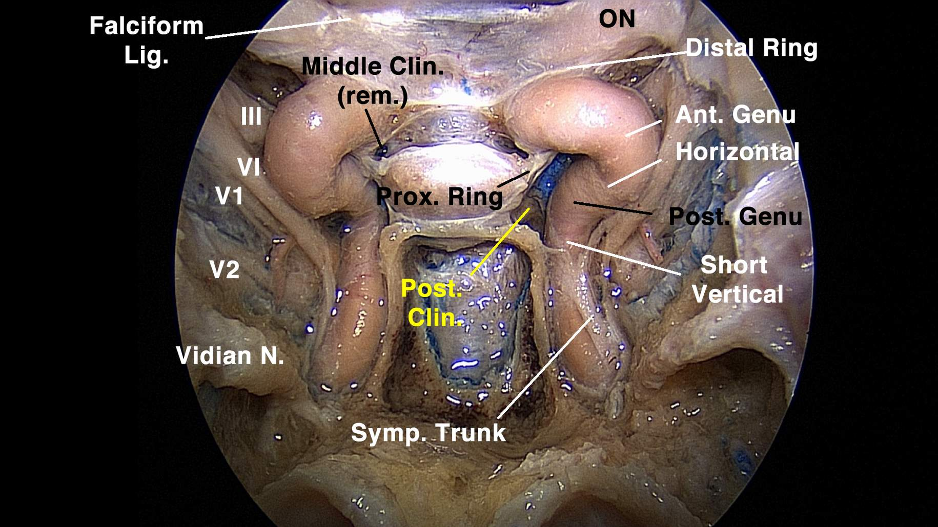 Figure 4: In this preparation, the periosteal layer was removed to expose the entirety of the cavernous sinus contents. Opening of the left medial wall of the cavernous sinus reveals the medial aspect of the parasellar ICA (Short vertical/Post. Genu — the hidden segment; Horizontal — inferior horizontal segment; Ant. Genu — anterior genu or anterior vertical segment). The pituitary gland is connected to the anterior bend of the parasellar ICA by an arachnoid band (Prox. Ring — proximal dural ring). Note that the vidian nerve (Vidian N.) comprises an important landmark in the sphenoid sinus floor, providing guidance to the ICA transition from the foramen lacerum to the paraclival carotid artery. Falciform Lig. — falciform ligament; Middle Clin. (rem.) — middle clinoid process removed; ON — optic nerve; Post. Clin. — posterior clinoid process; Symp. Trunk — sympathetic trunk (image courtesy of Juan Fernandez-Miranda).