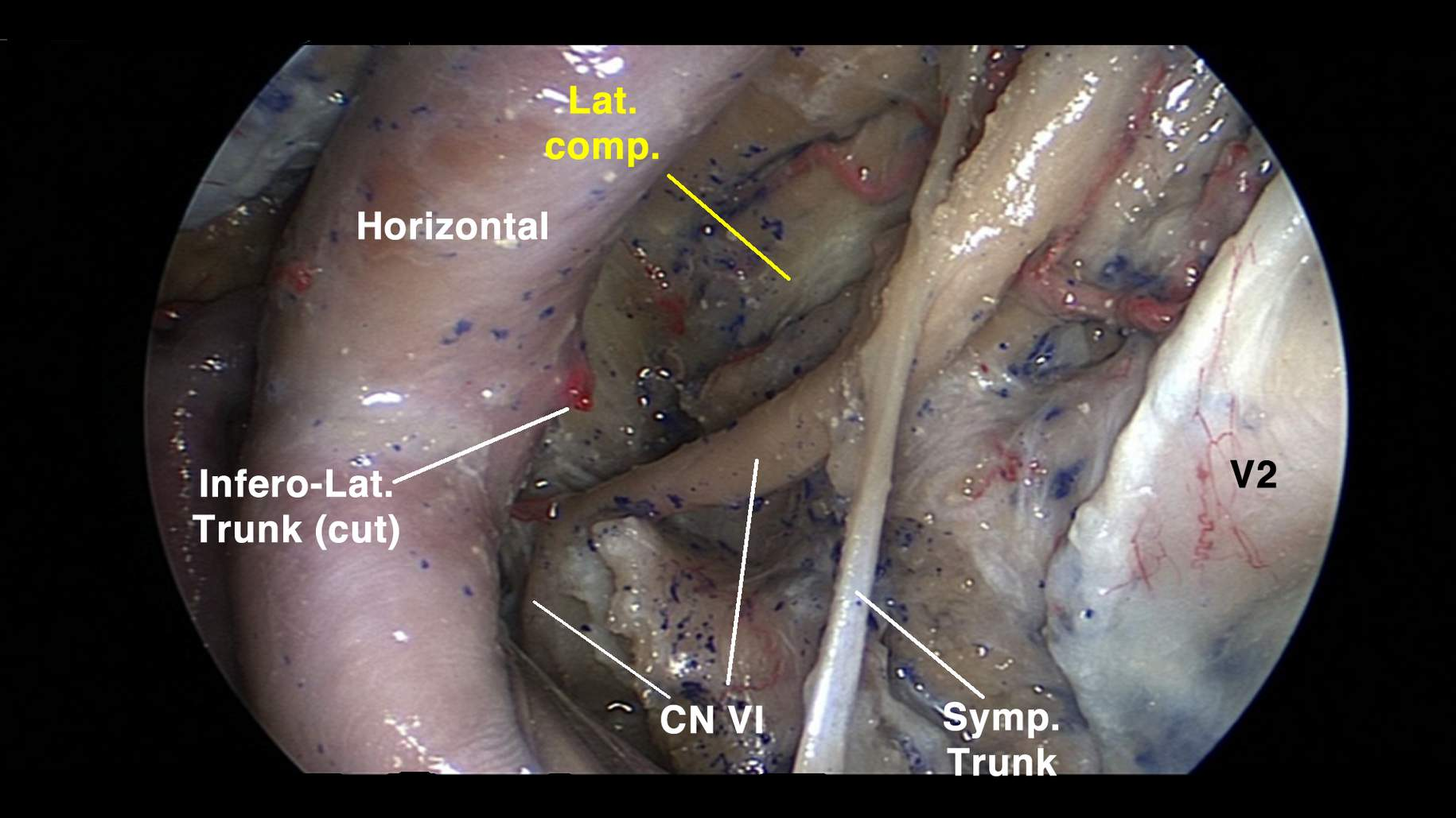 Figure 9: This endoscopic view of the left cavernous sinus lateral wall shows the entire course of the abducens nerve (CN VI) and its anatomic relationships to the short vertical segment of the ICA and the inferolateral trunk (Infero-Lat. Trunk). Lat. comp. — lateral compartment; Symp. Trunk — sympathetic trunk (image courtesy of Juan Fernandez-Miranda).