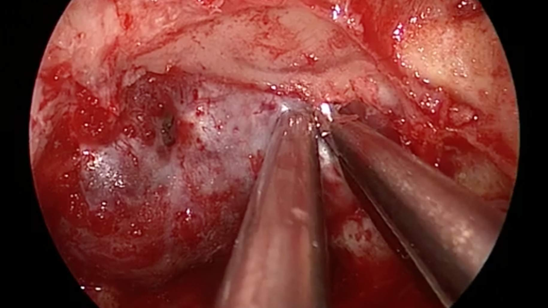 Figure 12: In such cases, sellar or clival bone opening is followed by resection of the bone over the anterior wall of the cavernous sinus, ipsilateral to tumor invasion, using a Kerrison punch (image courtesy of Juan C. Fernandez-Miranda).