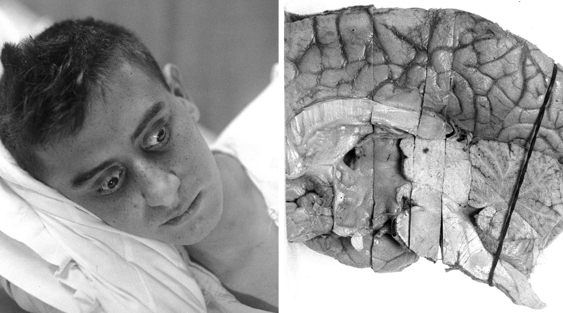 Figure 1: The man in this photograph, a patient of Harvey Cushing's, suffered from Parinaud's syndrome and died before a diagnosis and tumor localization was made. The autopsy specimen (right photo) demonstrates a tumor located in the pineal region (images courtesy of Cushing Brain Tumor Registry at Yale University).