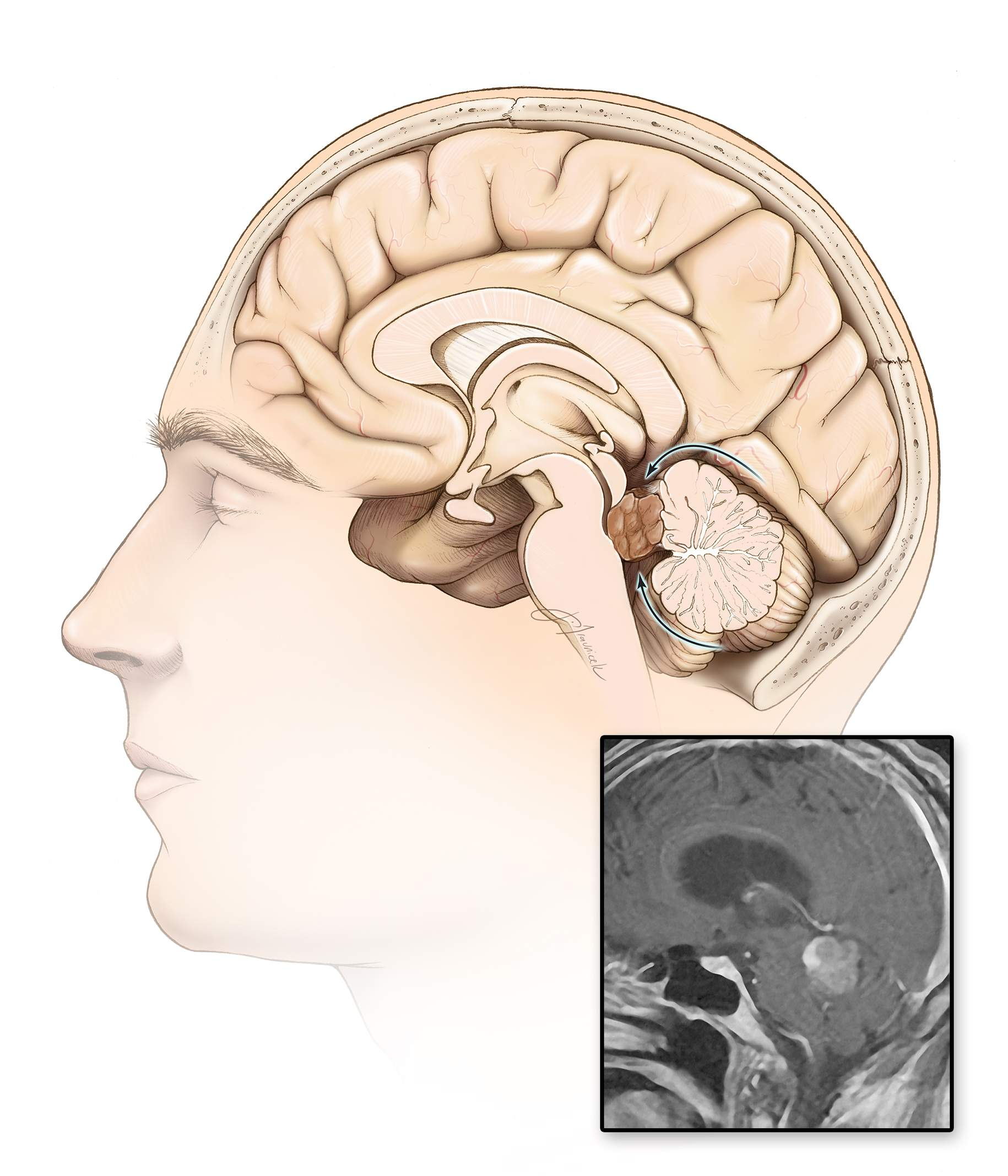 Figure 10: A combined infratentorial-supracerebellar and telovelar approach may be necessary for tumors along the superior fourth ventricle and extending into the pineal region. The supracerebellar route alone is likely to be inadequate to create enough tumor exposure without undesirable retraction on the cerebellum.