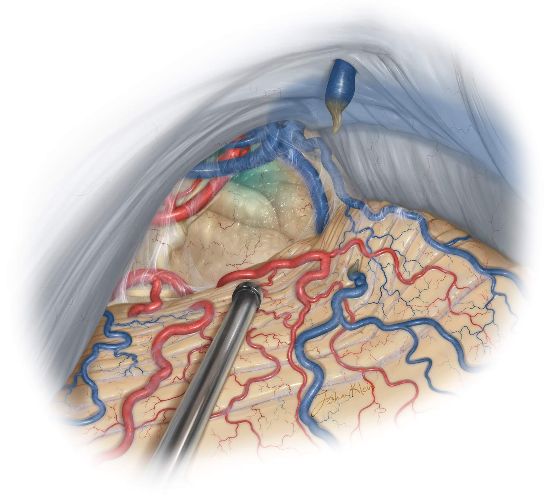 Figure 18: This non-traditional lateral trajectory can be disorienting to the surgeon. The third ventricle in ghosted in blue anterior to the tumor to illustrate the risk of penetrating the contralateral wall of the ventricle if the operator is not aware of the underlying anatomy deep to the tumor based on the working angle of the dissection.