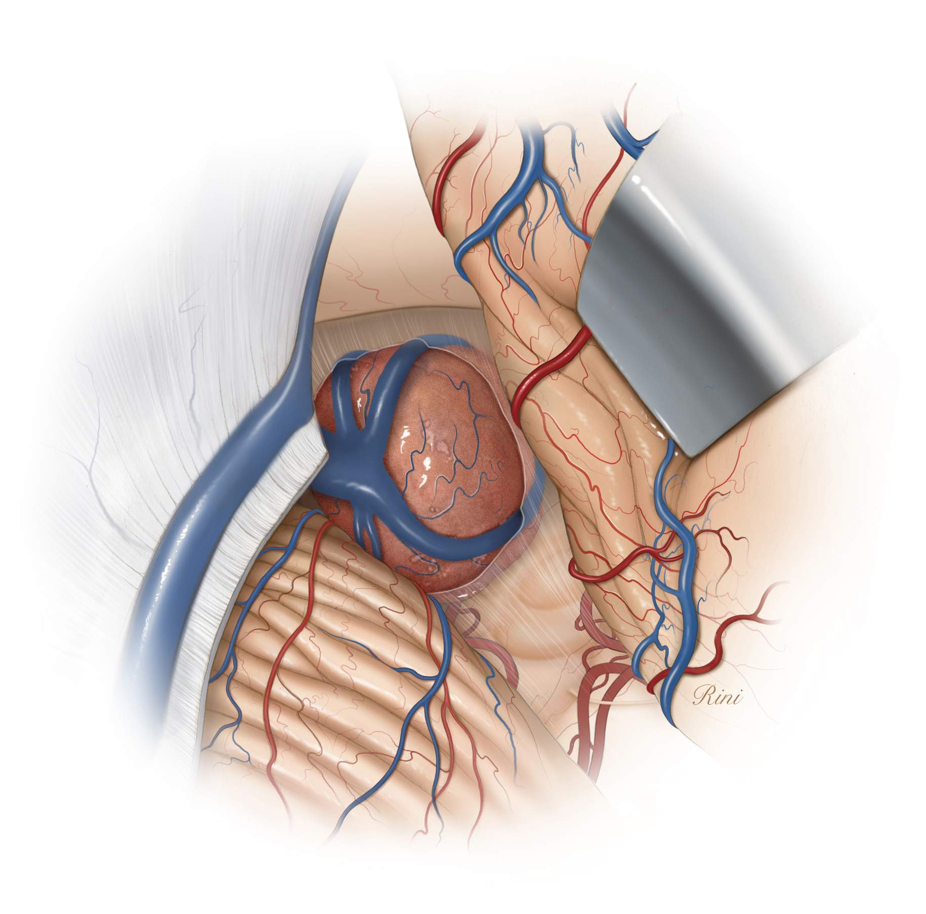 Figure 6: A typical location of a large pineal region tumor and the variations in the displacement of the deep veins are illustrated. The precentral cerebellar vein is coagulated, allowing the vermis to be mobilized away from the operative corridor.
