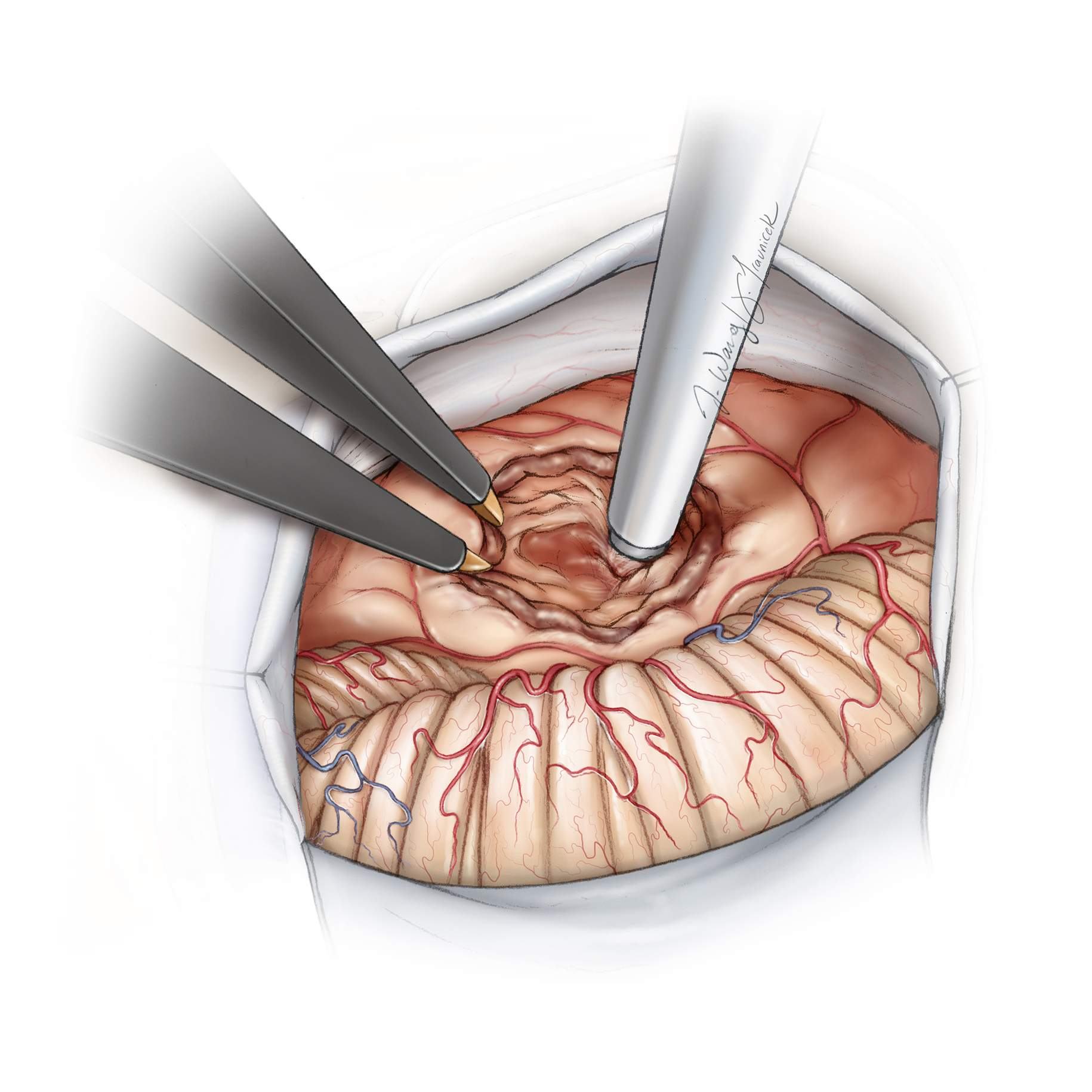 Figure 9:  Maximal safe internal tumor debulking using an ultrasonic aspirator without interruption of the anterior, superior, and inferior poles/capsule of the tumor is the key maneuver and tremendously facilitates the later stages of the operation. This technique provides enhanced tumor capsule dissection and mobilization while decreasing neural tissue stretch/retraction.