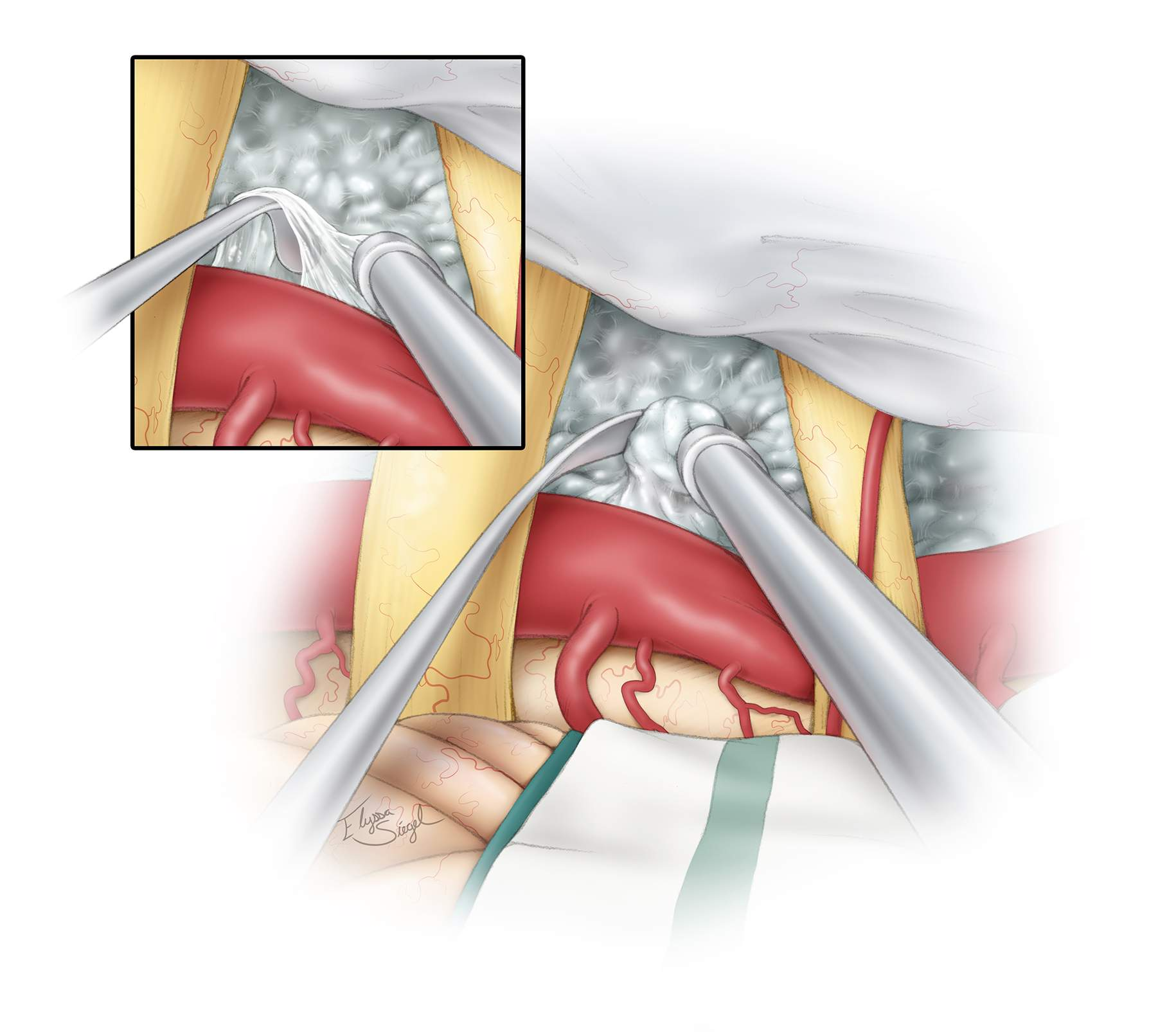 """Figure 11: Once the tumor in the ventral space ipsilateral to the basilar artery has been removed, exploration of the tumor beyond and on the contralateral side of this artery begins. This maneuver should be done via dynamic retraction on the artery using the hand-held suction device. Blind manipulation of and traction on tissues can result in perforator injury. The corridor between CNs V and VII/VIII is ideal for exploring resection of the lesions crossing the midline. It is important to avoid direct traction on the CN VII/VIII complex; however, the tolerant CN V may be gently manipulated if necessary. The encasing arachnoid membranes of the tumor on the pia, contralateral to the basilar artery, are used to deliver the tumor into the operator's view (inset image). Overall, the encasing arachnoid bands provide an effective """"handle"""" to mobilize the tumor during various steps of lesion removal."""