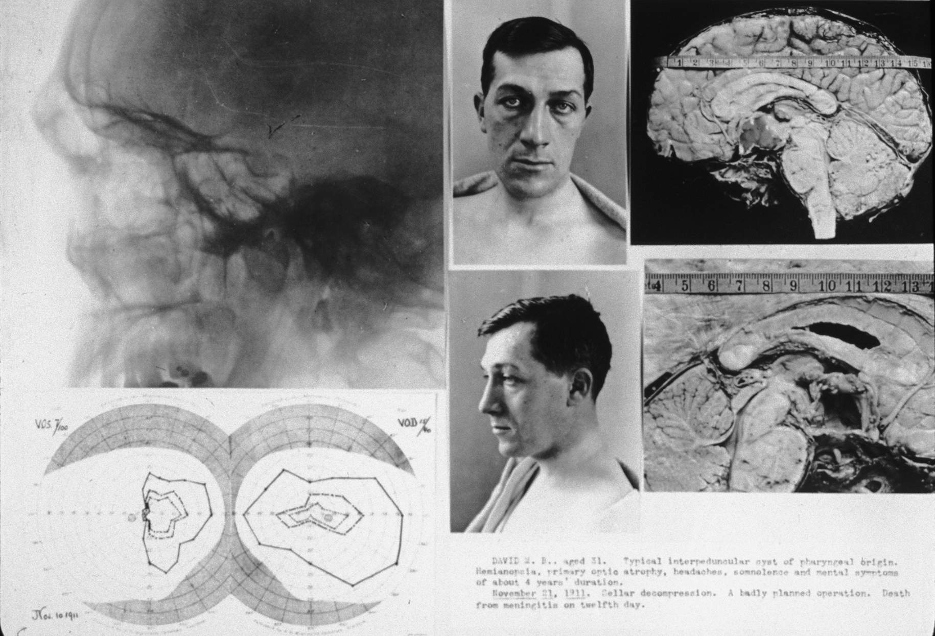 "Figure 1: Photos of a patient of Harvey Cushing who died from meningitis after surgery for a suprasellar craniopharyngioma on November 12, 1911. This image is the lantern slide that Cushing used in his lectures. The operative note by Cushing noted: ""Typical interpeduncular cyst of pharyngeal origin. Sellar decompression. A badly planned operation. Death from meningitis on twelfth day."" The autopsy brain specimens on the right demonstrate the extent of tumor decompression through the transsphenoidal route."