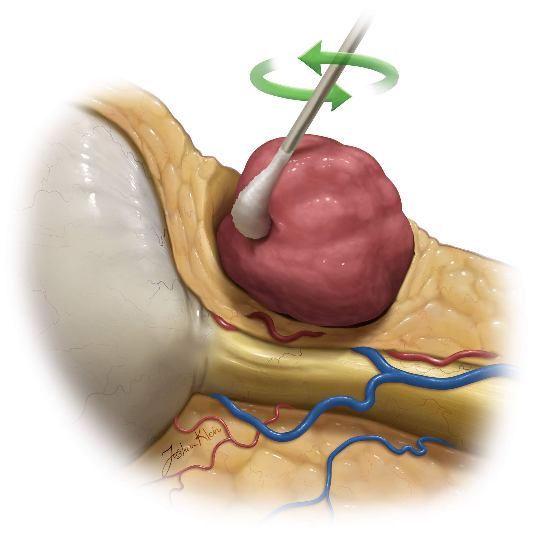 Figure 10: In this sagittal view, the rolling motion of the Q-tip in dissecting the fat away from the tumor capsule is demonstrated.