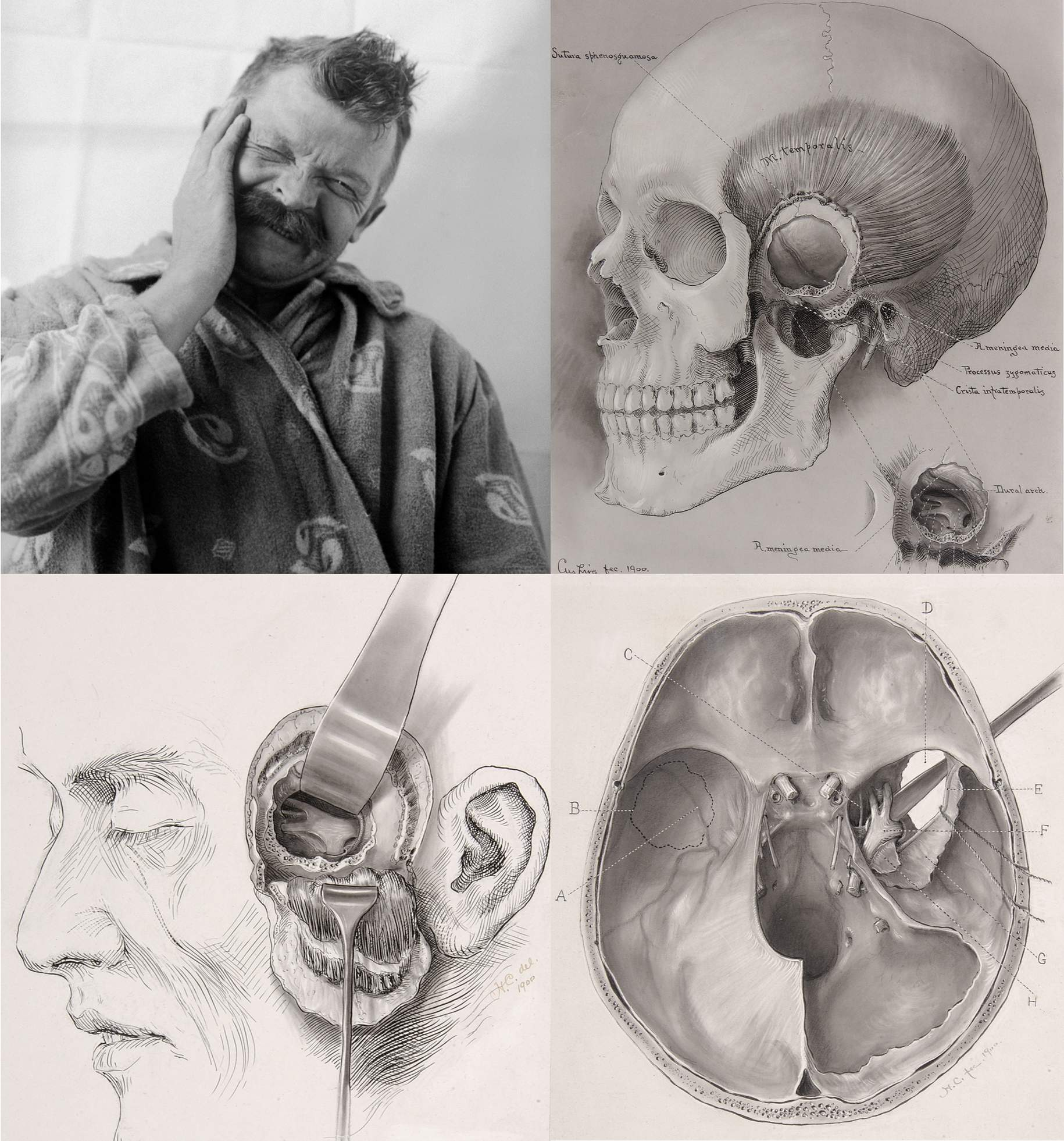 Figure 1: One of the first patients of Harvey Cushing suffering from an attack of trigeminal neuralgia. This image is most likely one of the earliest photographs of a patient with this disease (top image). Cushing's original sketches demonstrate his technique of subtemporal sensory nerve avulsion (middle and bottom images)(Courtesy of Cushing Center at Yale University).