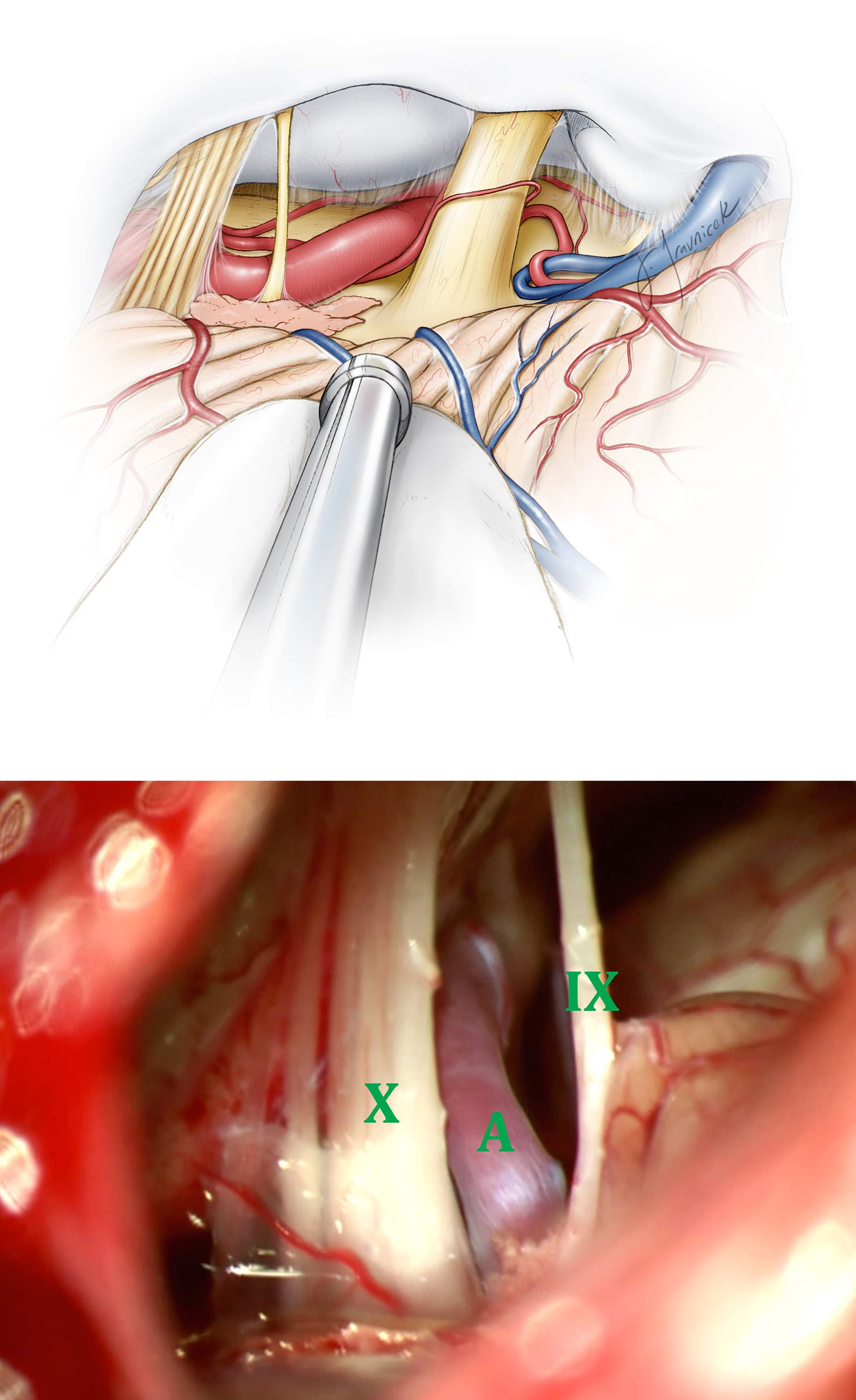 Figure 10: Once the arachnoid membranes are dissected, the anatomy of the lower cranial nerves in relation to CN VII/VIII complex should be easily appreciated (top image). The offending artery (A) is usually apparent between CN's IX and X. The arachnoid bands between CN's IX and X must be sharply transected and the nerves clearly identified and separated (bottom image). Given the variations that could be present, it is important to correctly identify cranial nerves before CN IX transection and CN X decompression is undertaken.