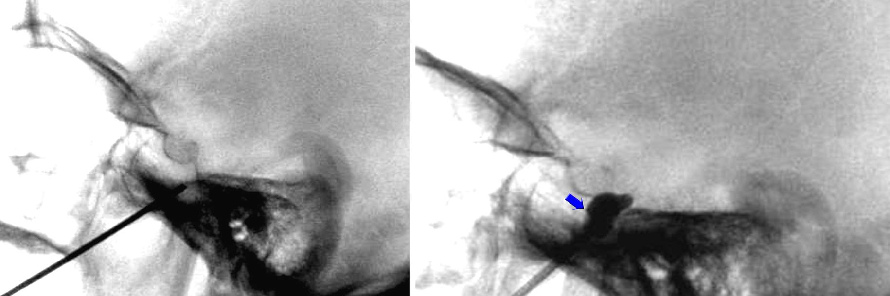 Figure 13: The needle is advanced slightly into the foramen. A lateral fluoroscopic image confirms the final location of the needle tip beyond the skull base (left image). In the case of a balloon compression rhizotomy, the balloon may be inflated within the Gasserian ganglion cistern as demonstrated (right image). The final location of the balloon demonstrates the slight extension of the balloon into the foramen rotundum (blue arrow).
