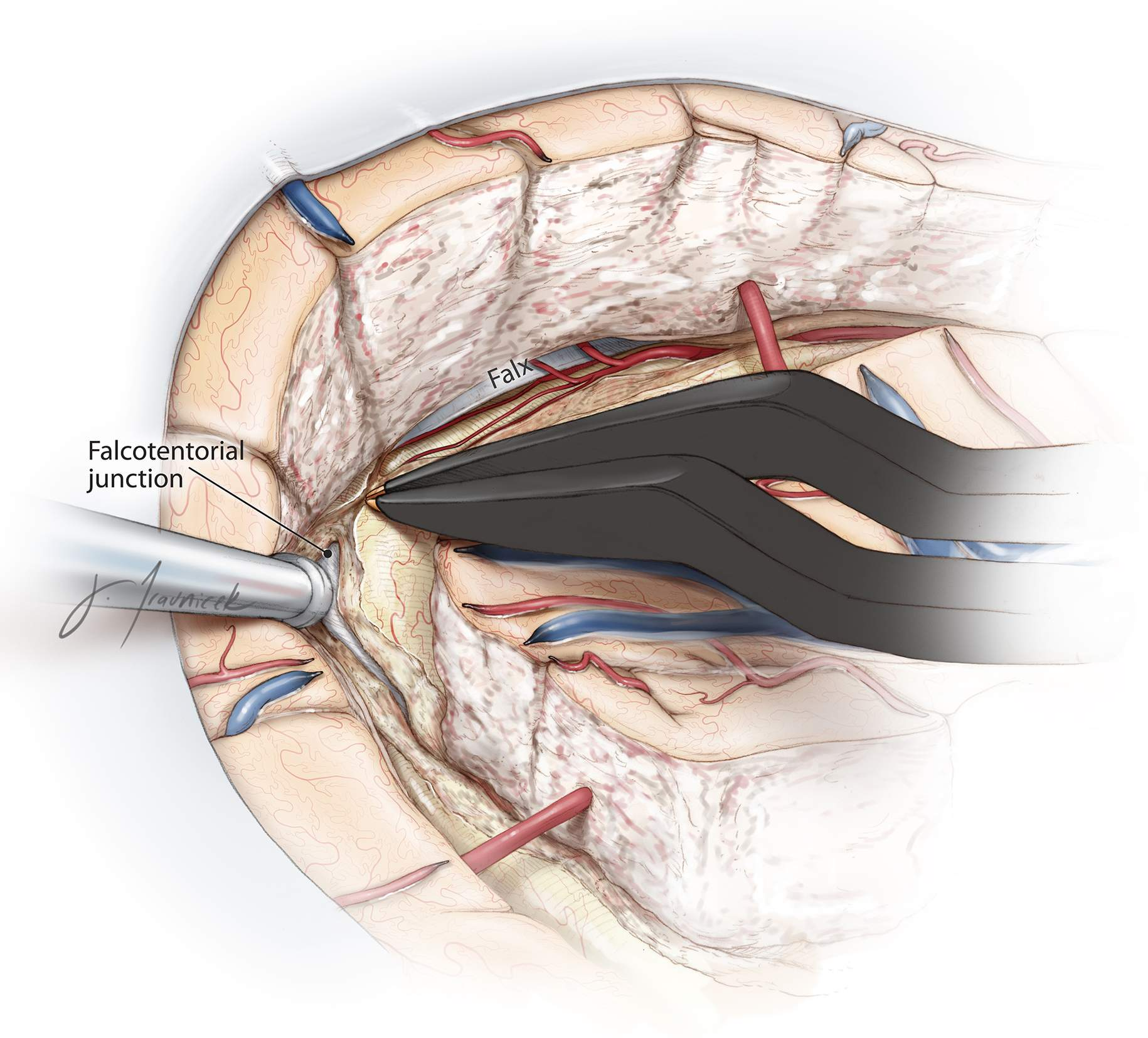 Figure 15: The posterior edge of the falx continues to guide the surgeon to reach the tentorium. Care should be taken to continue subpial dissection during this transection and to preserve branches of the posterior cerebral artery crossing through the medial and inferior arachnoid membranes. The dissection within the atrium of the lateral ventricle must be performed posterior to the choroid plexus to ensure preservation of the thalamus.